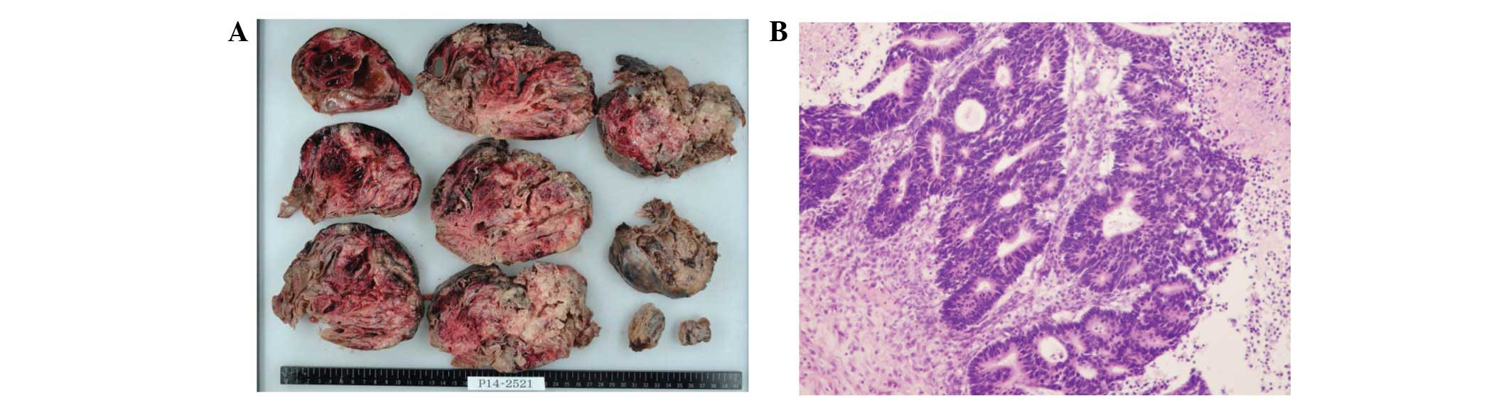 Synchronous Ovarian Metastasis From Colorectal Cancer A Report Of Two Cases