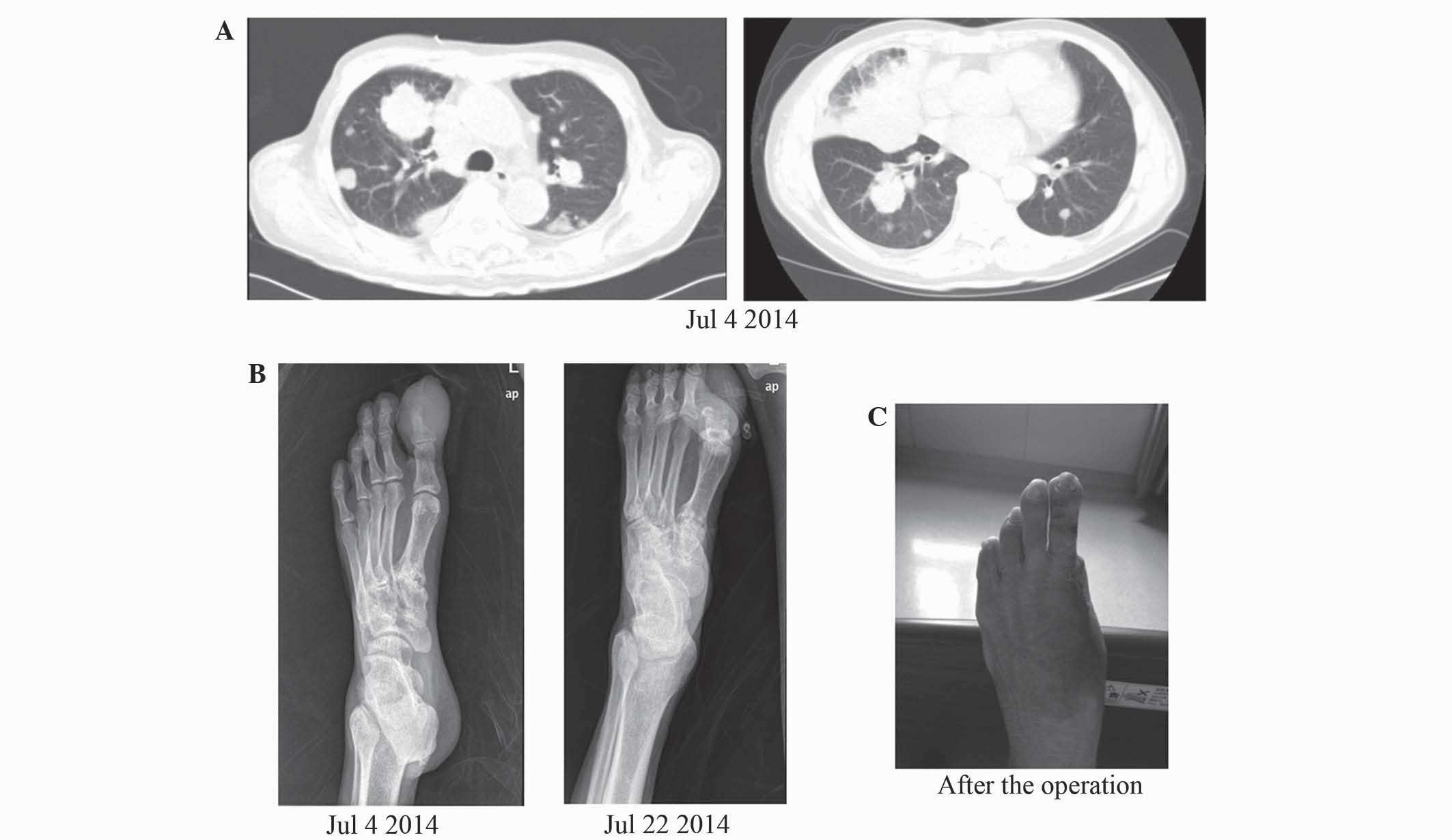 Chinese herbal treatments for prostate cancer metastisis to -  B X Rays Revealing The Gradually Developing Morphological Changes Of The Phalanx Of The Left Hallux C The Patient S Foot Subsequent To Amputation