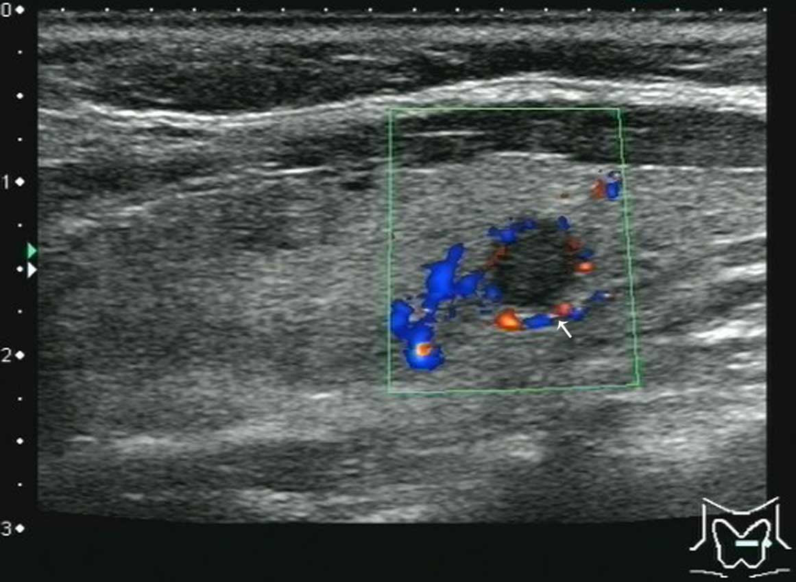 Ultrasonic Features Of Papillary Thyroid Microcarcinoma Coexisting