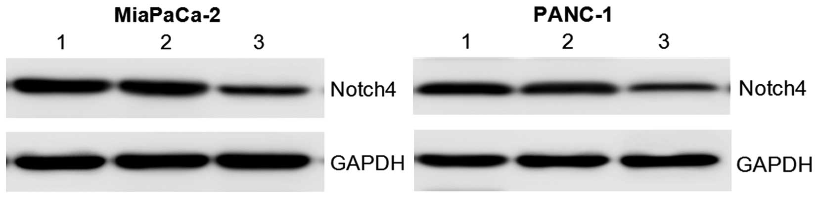 Notch4 inhibition reduces migration and invasion and