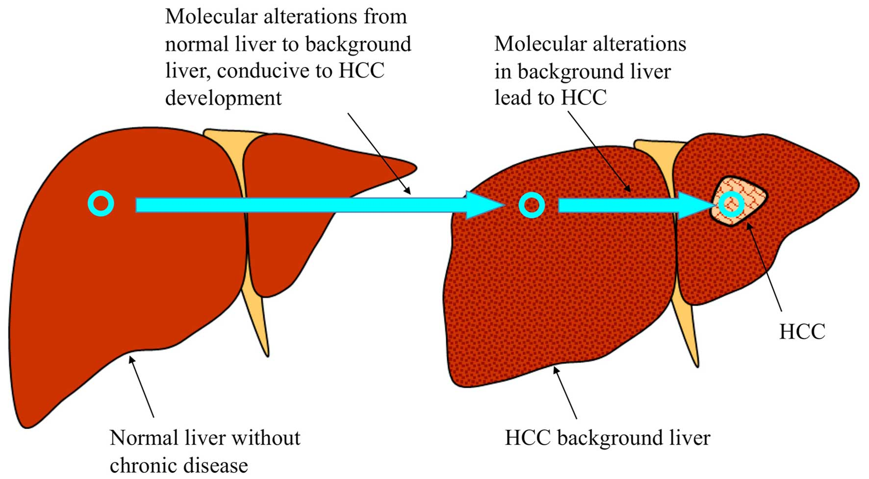 Molecular alterations in the carcinogenesis and progression of schematic of the molecular alterations in hepatocarcinogenesis normal liver with no chronic liver disease can become through hepatitis virus ccuart Images