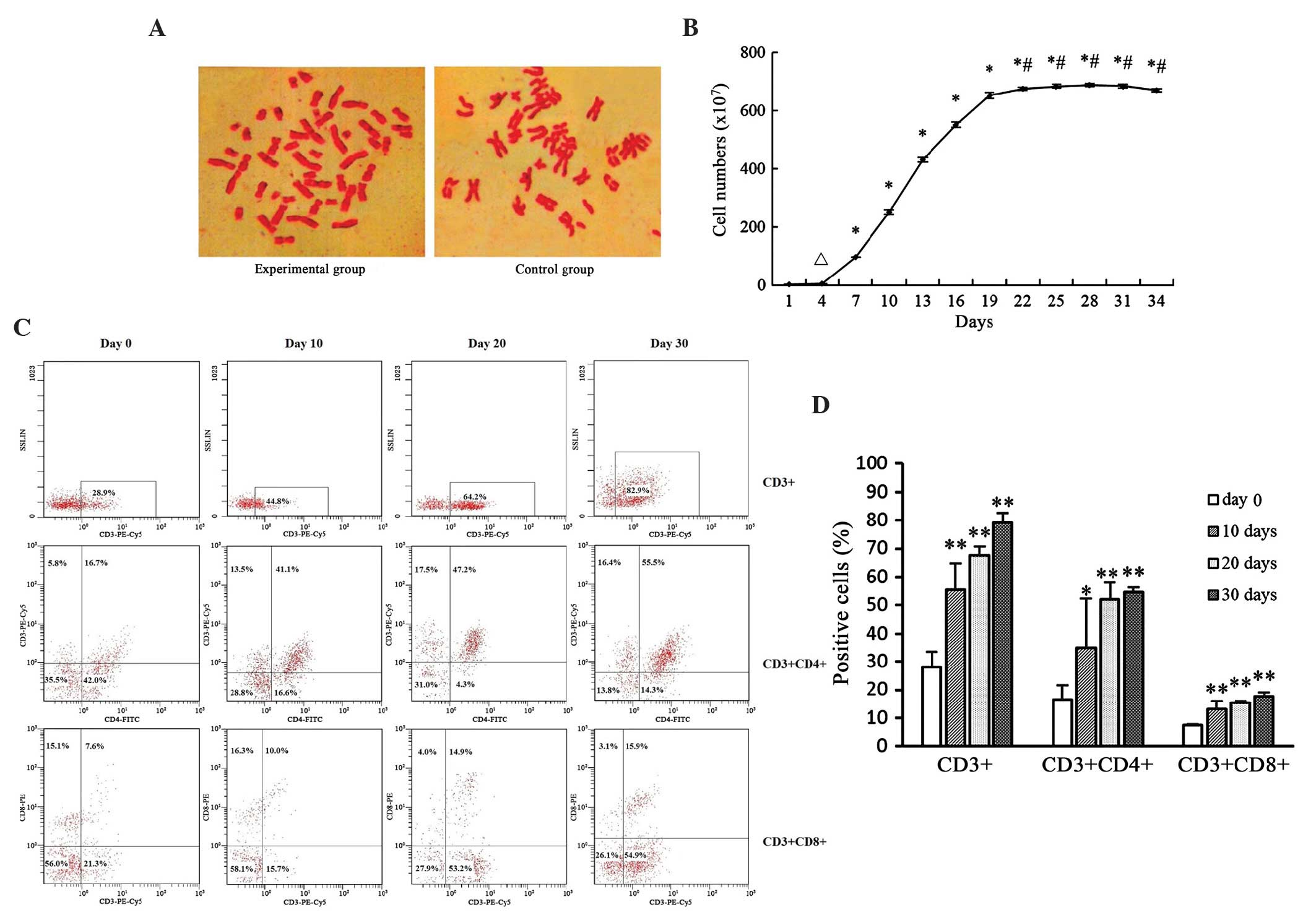 Establishment of specific cytotoxic T lymphocyte culture system and