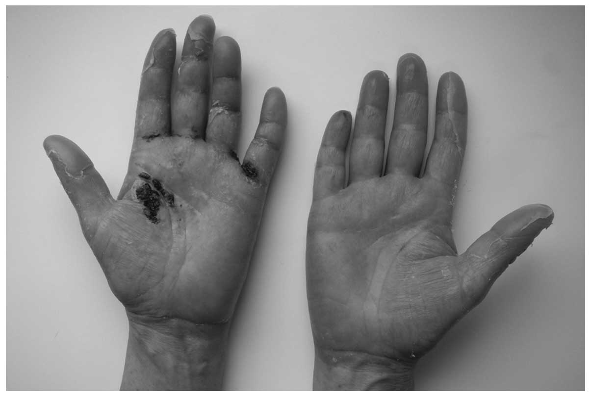 Skin Toxicity In A Patient With Ovarian Cancer Treated With Pegylated Liposomal Doxorubicin A Case Report And Review Of The Literature