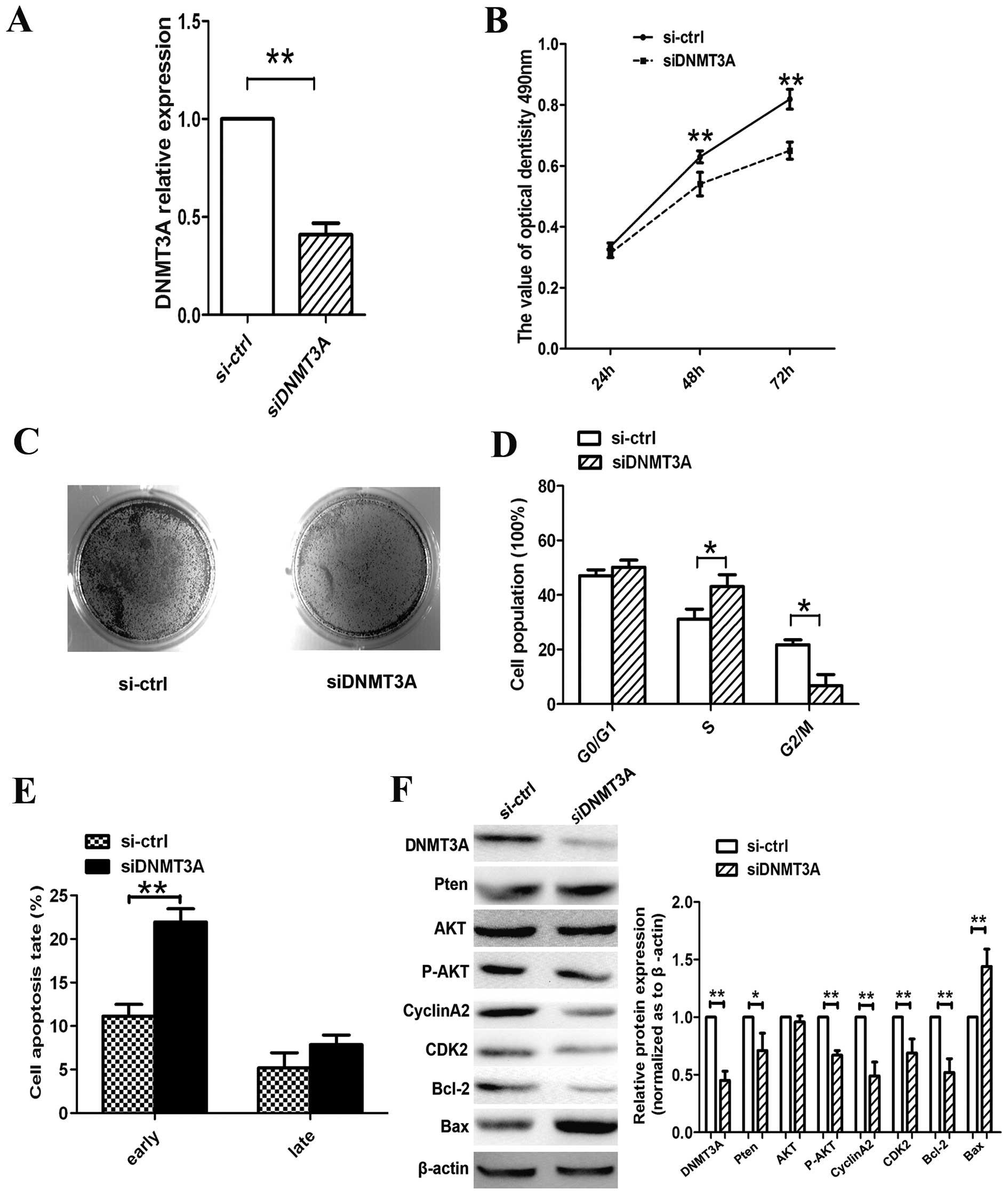 Knockdown of DNA methyltransferase‑1 inhibits