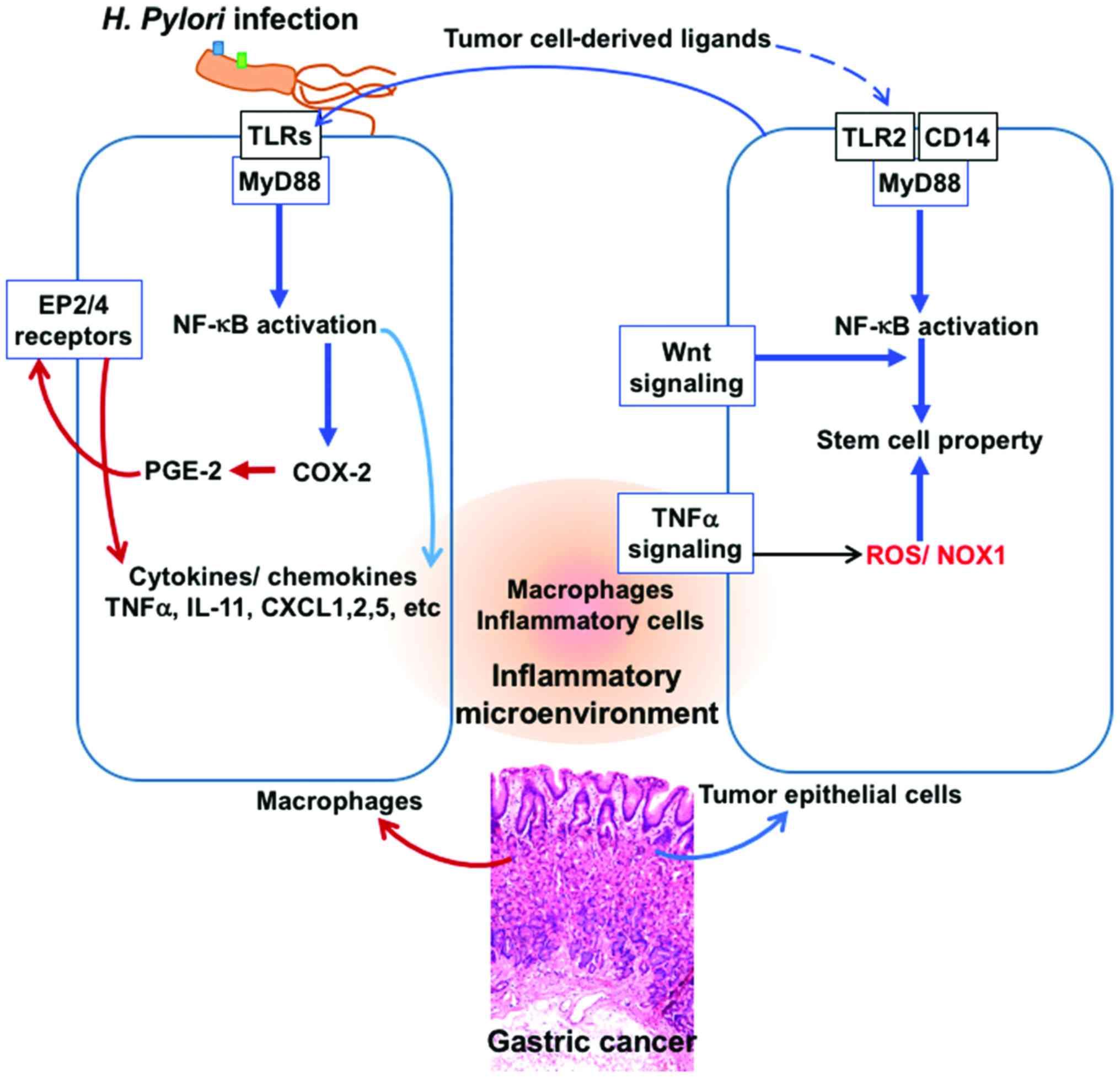 cancer gastric helicobacter pylori lista agenților antihelmintici