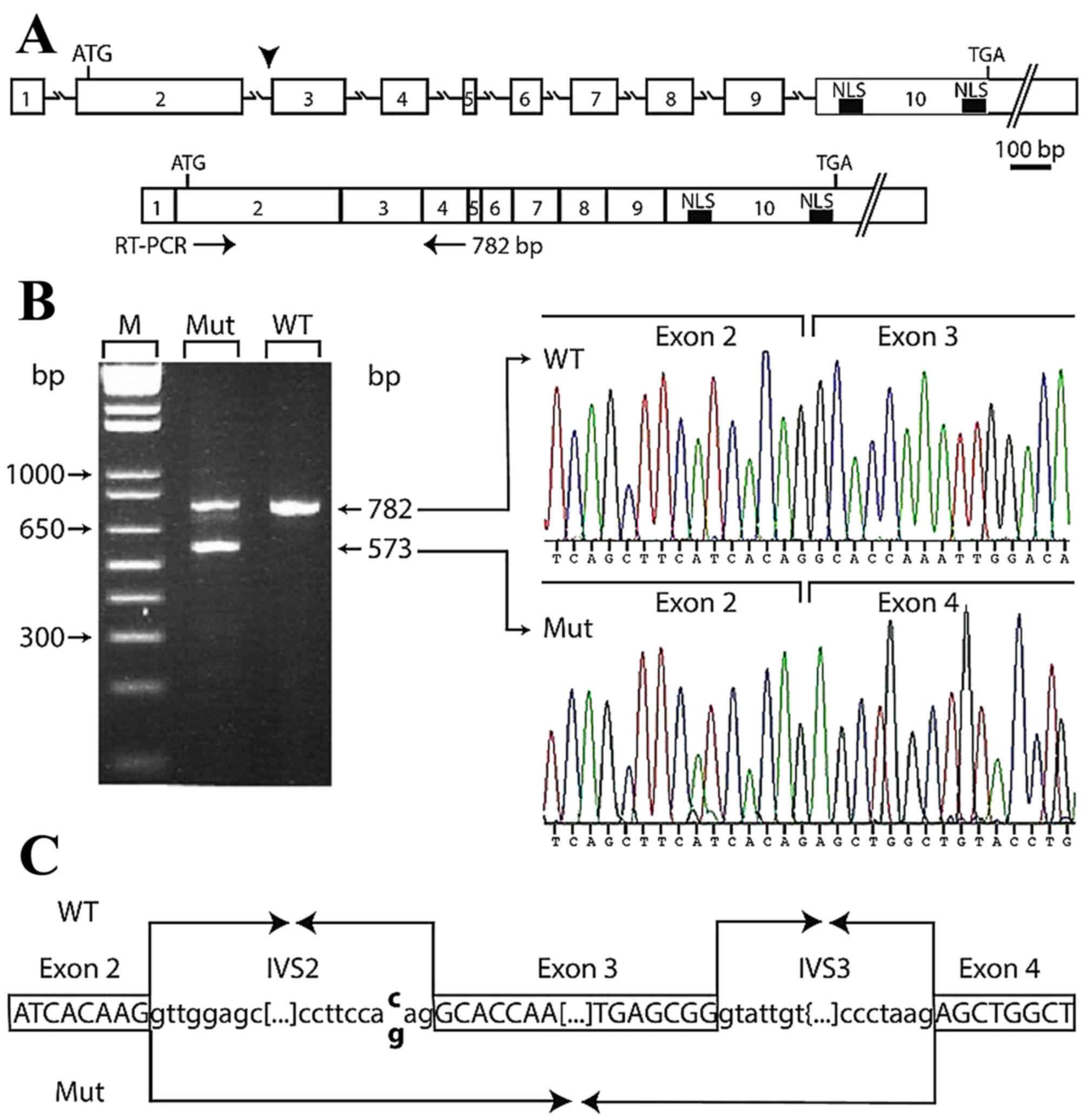 Novel association of MEN1 gene mutations with parathyroid