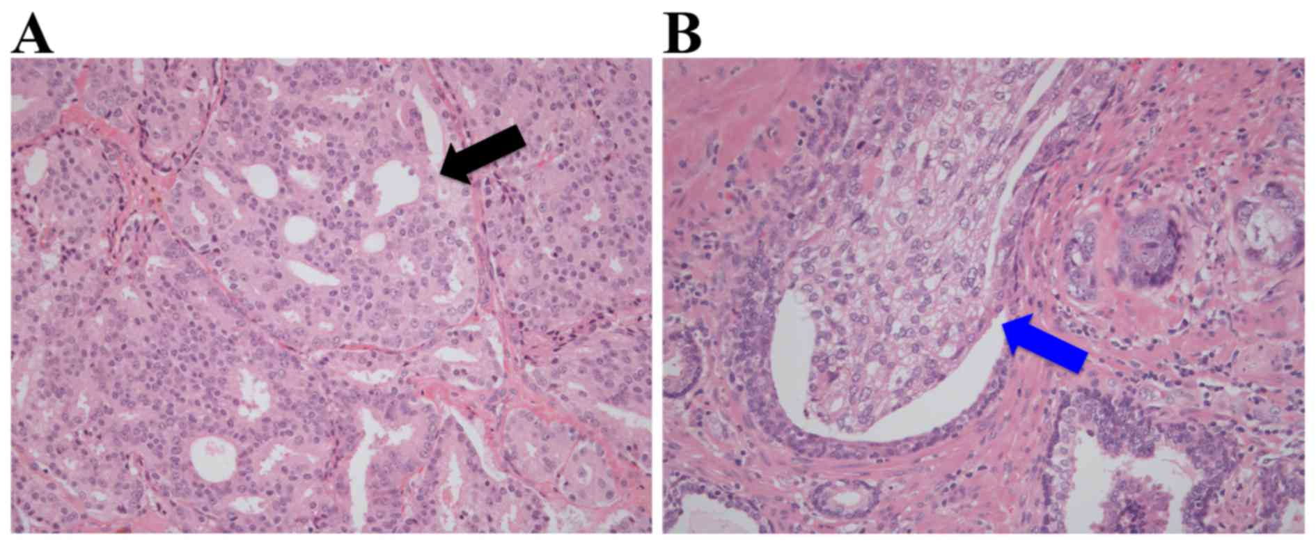 adenocarcinoma de próstata gleason 4 4 80