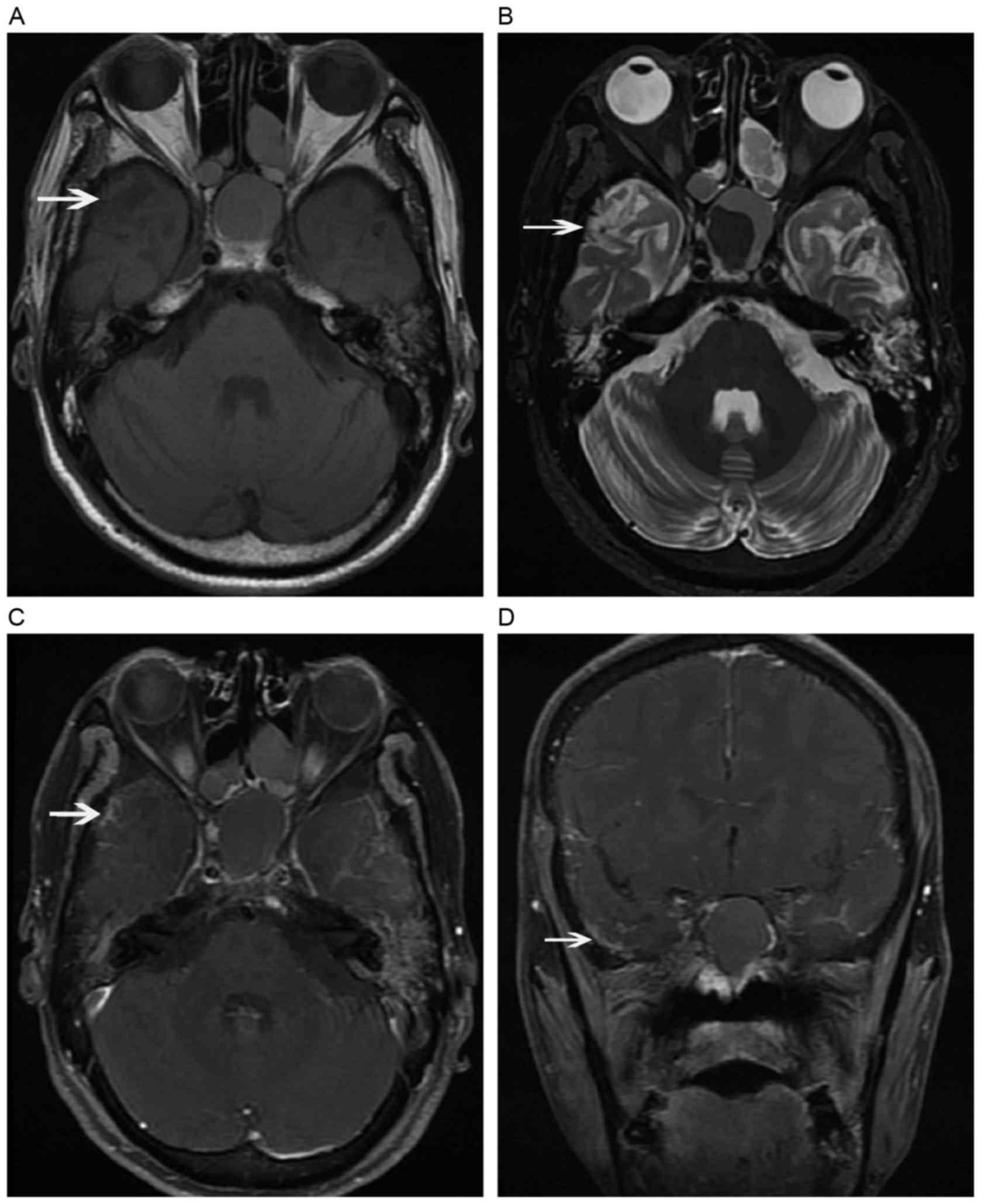 Dynamic MRI follow-up of radiation encephalopathy in the temporal ...