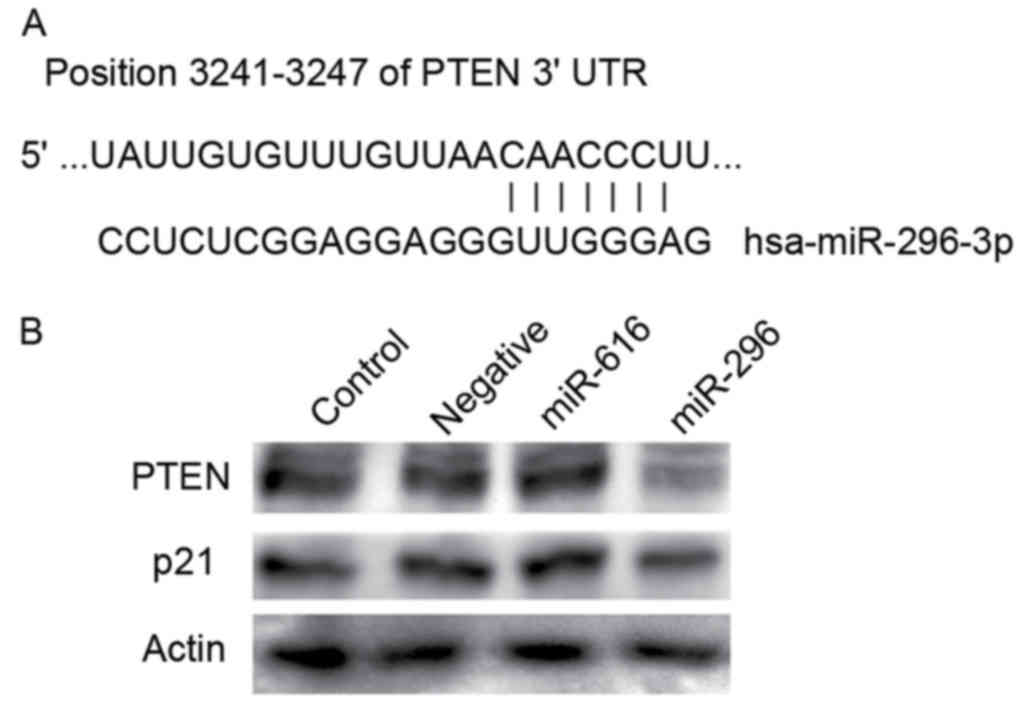 Role Of Microrna 296 3p In The Malignant Transformation Of Sinonasal