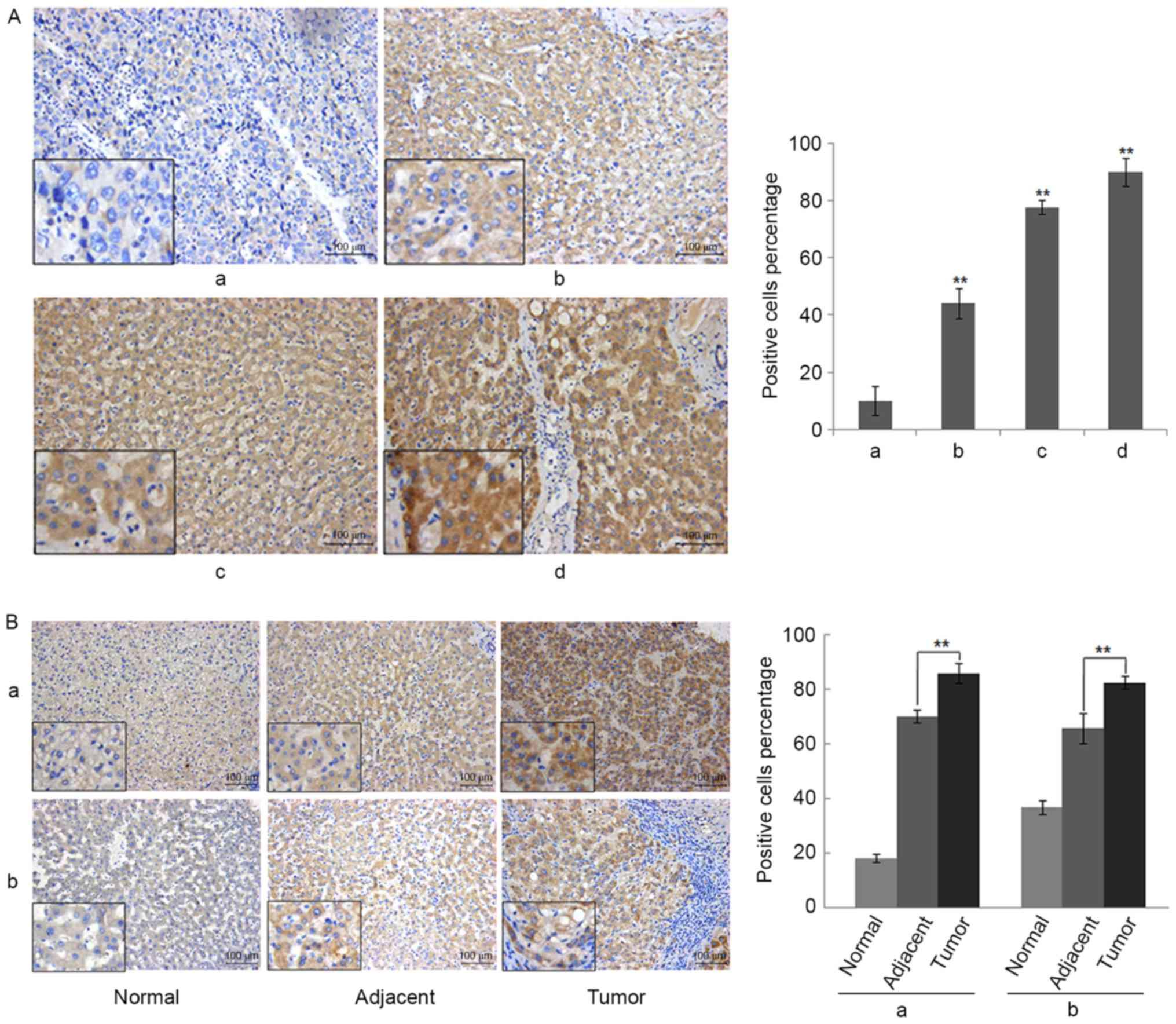 R-spondin 2 promotes proliferation and migration via the Wnt/β