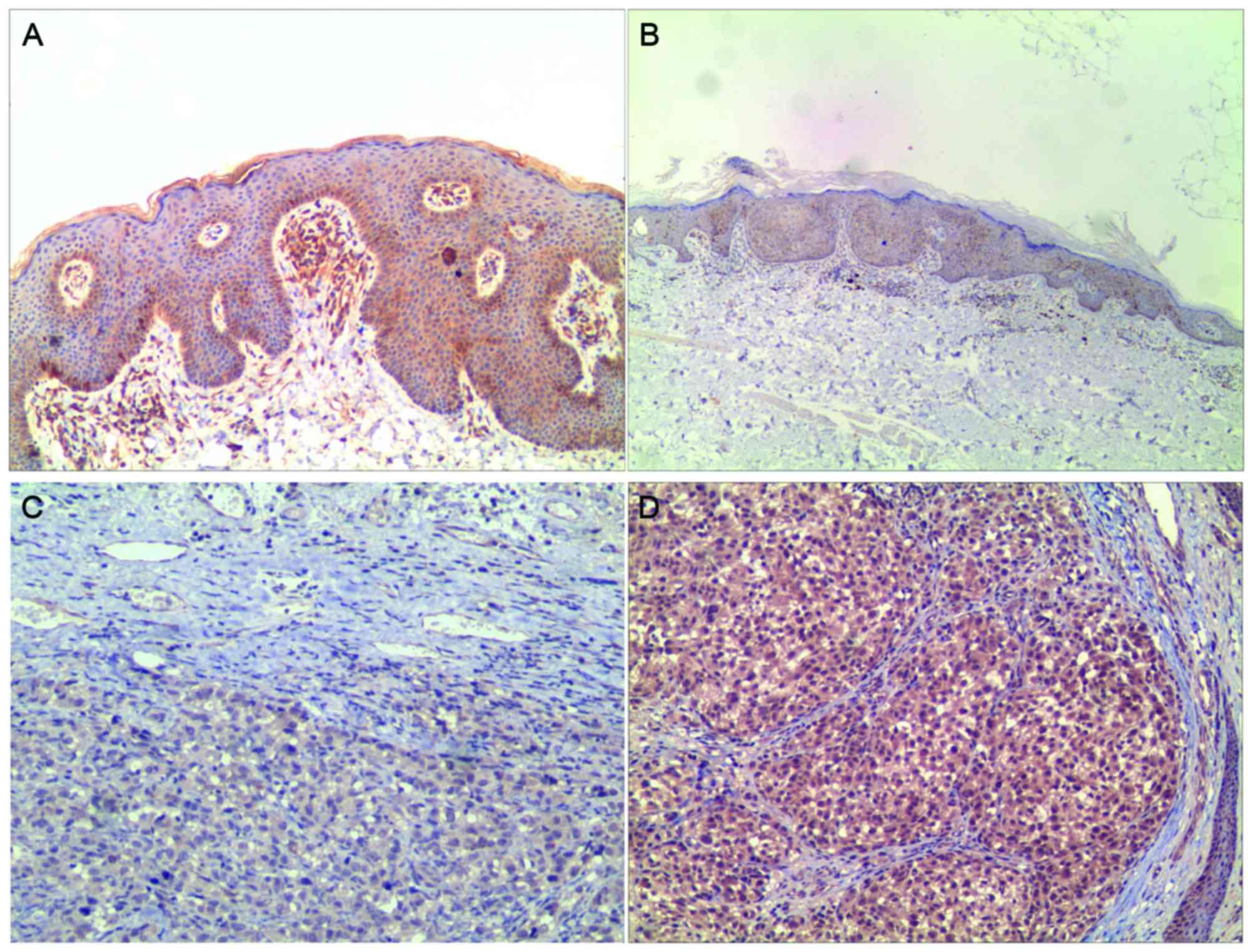 Prognostic significance of LKB1 promoter methylation in
