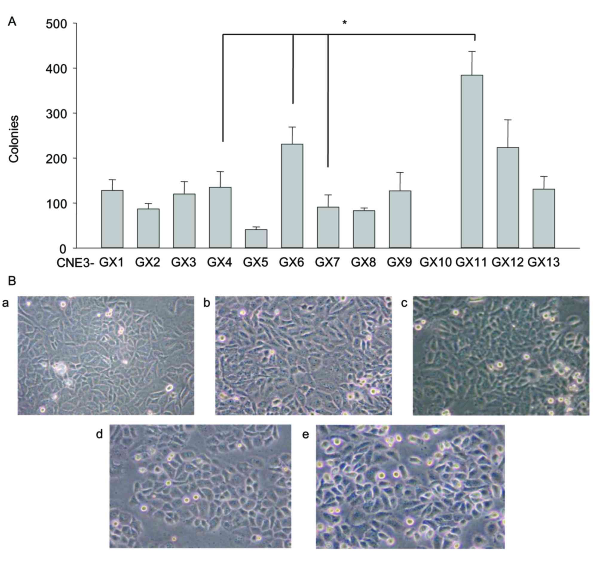 Differences in Zbtb7a expression cause heterogeneous changes in