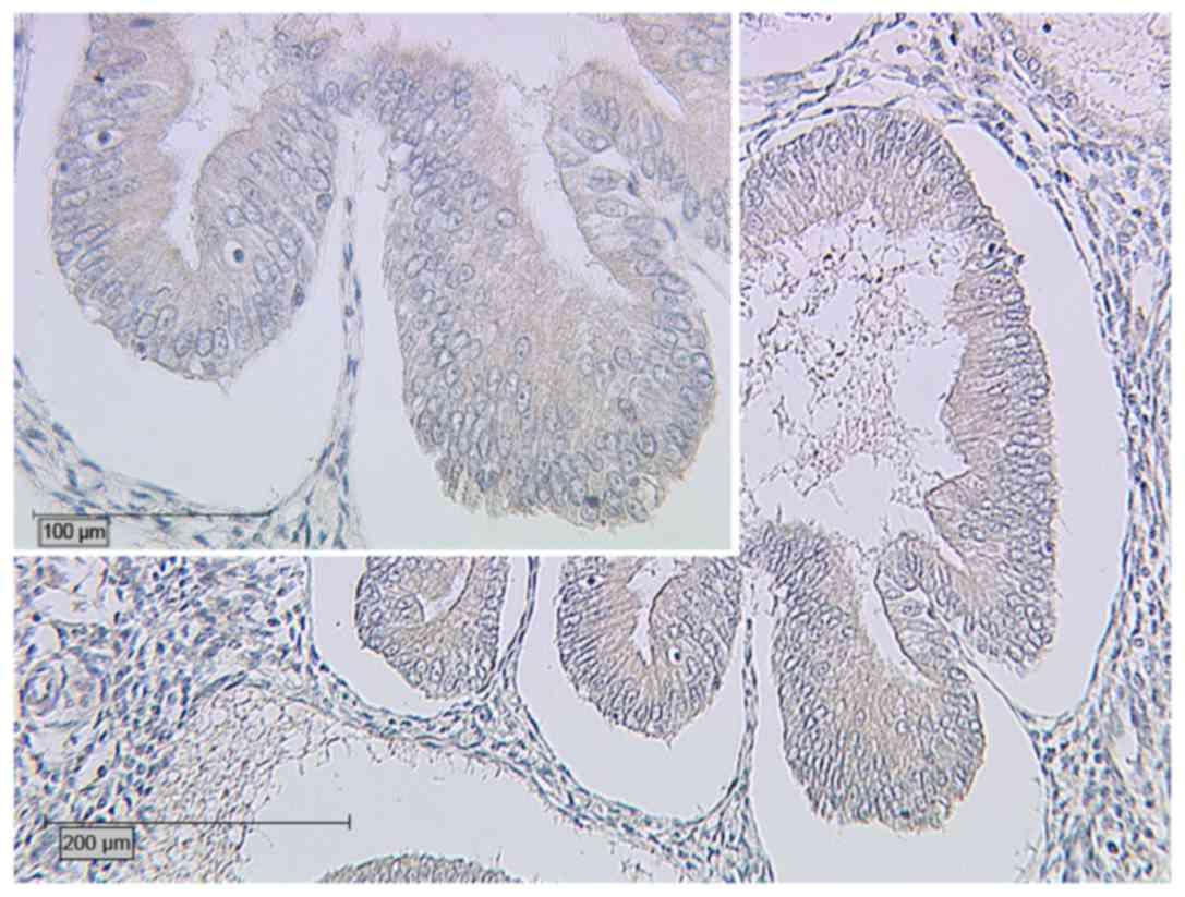 endometrial cancer or adenomyosis kit de imunitate secom