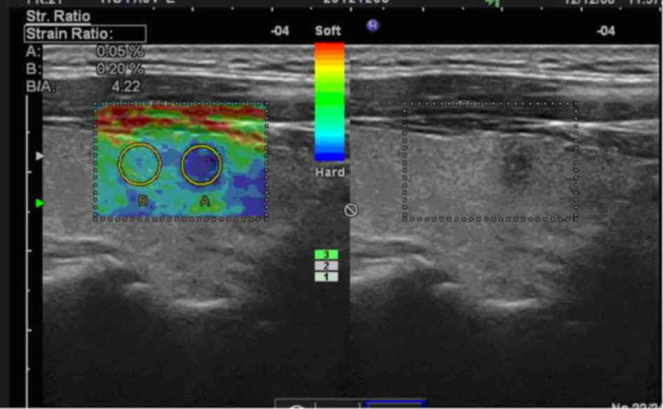 Comparison Of The Effectiveness Of Ultrasound Elastography With