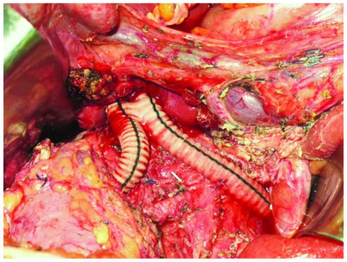 Leiomyosarcoma Of The Inferior Vena Cava Survival Rate Following