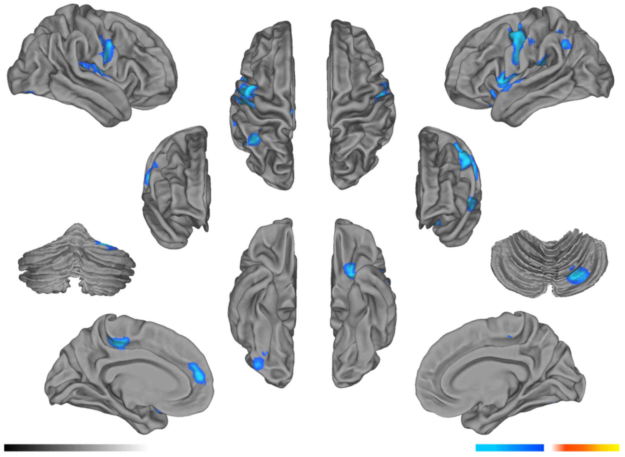 e48f51ba64d Figure 5. Compared with the pre-radiation group, the gray matter volume  decreased significantly in the bilateral temporal lobe, parietal lobe,  right frontal ...
