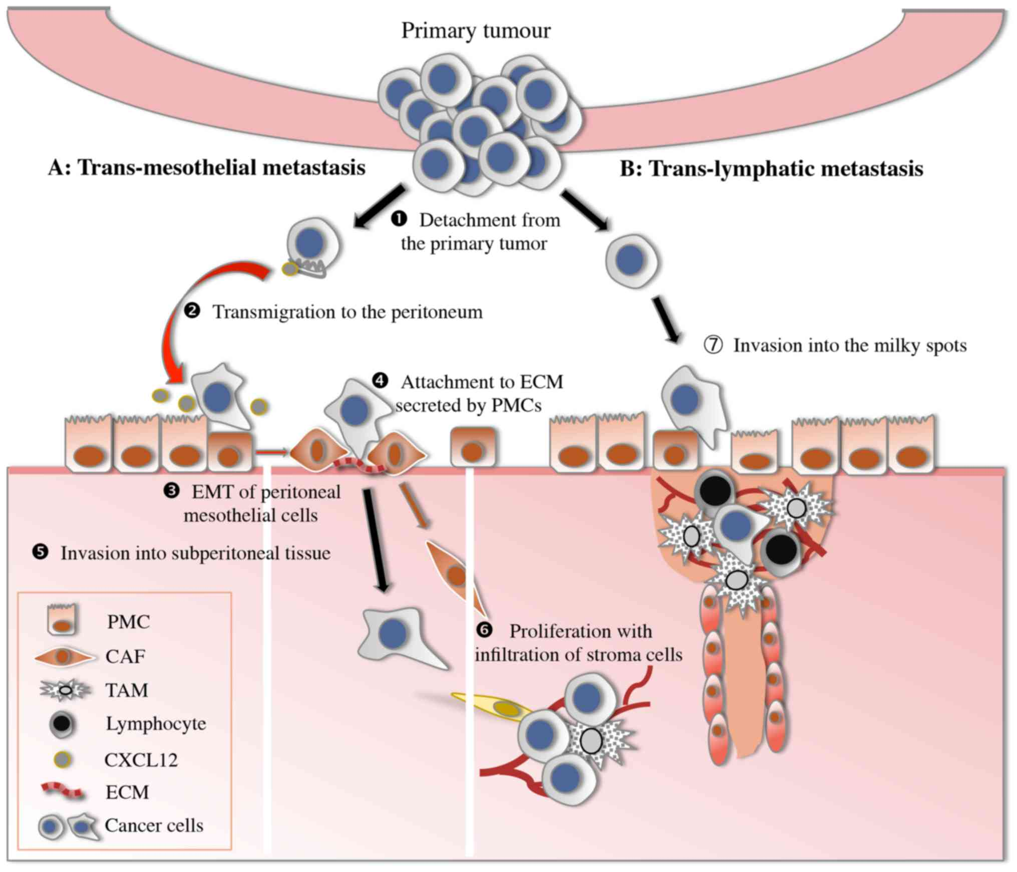 gastric cancer vascular invasion