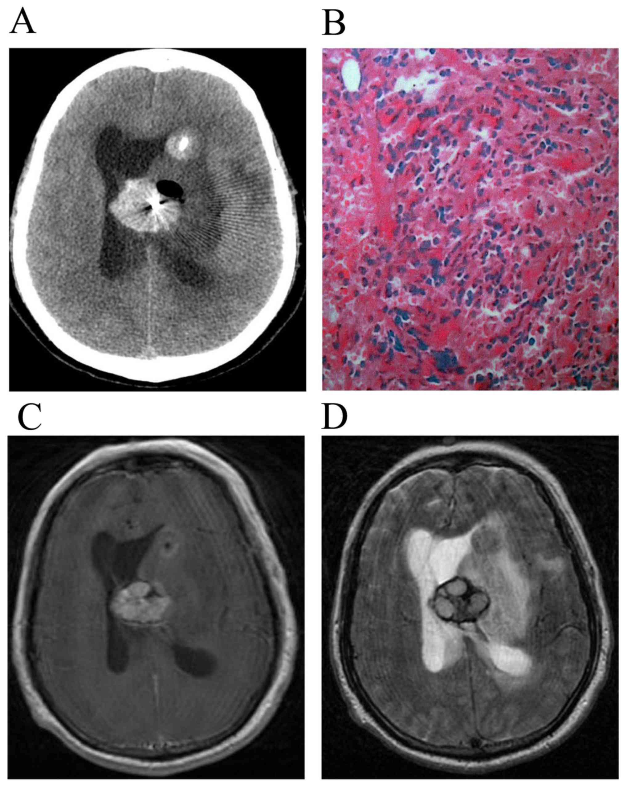 Lesions of the central nervous system in leukemia: Pathological and