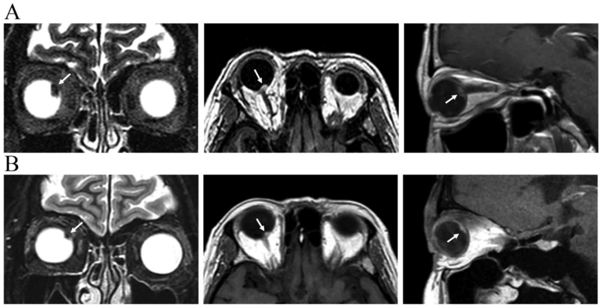 MRI Images Of A Patient With Choroidal Melanoma Prior To Treatment And B 38 Months After GK SRS The Revealed Tumor Shrinkage Decrease