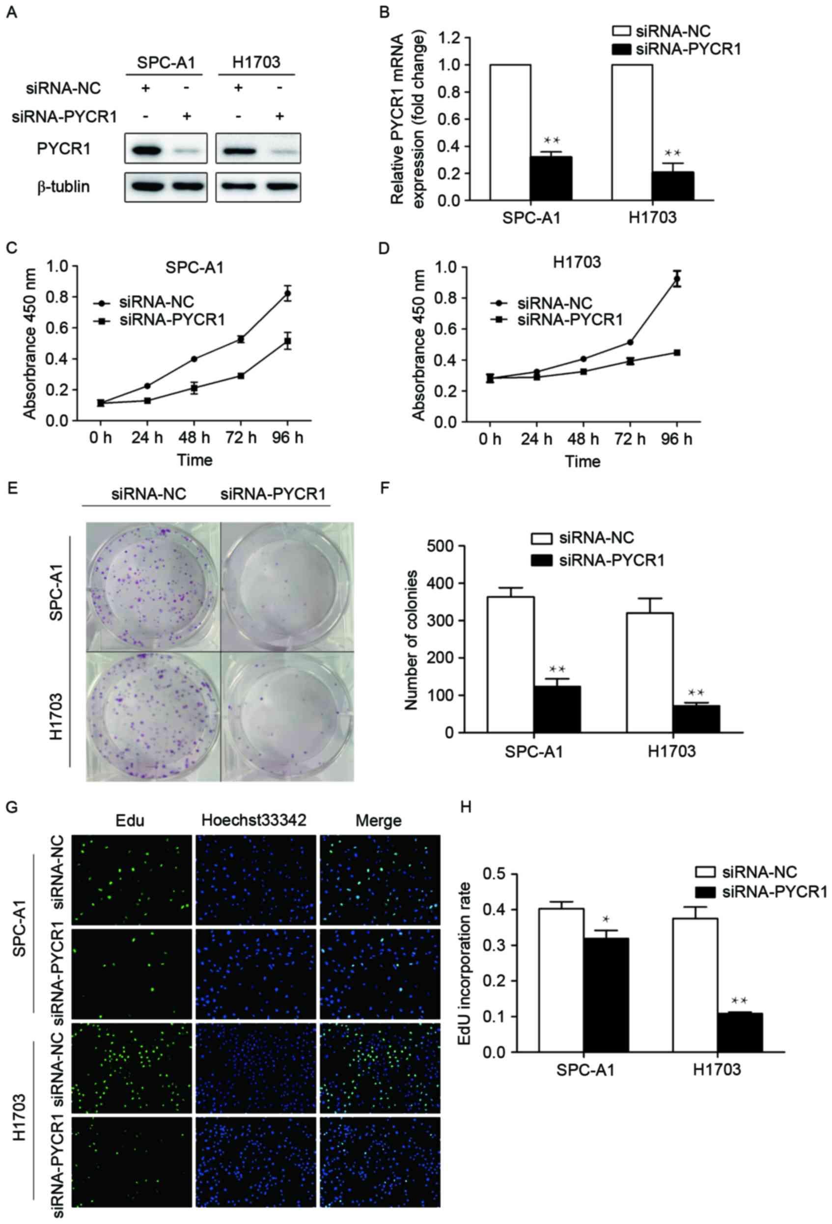 Pyrroline‑5‑carboxylate reductase 1 promotes proliferation