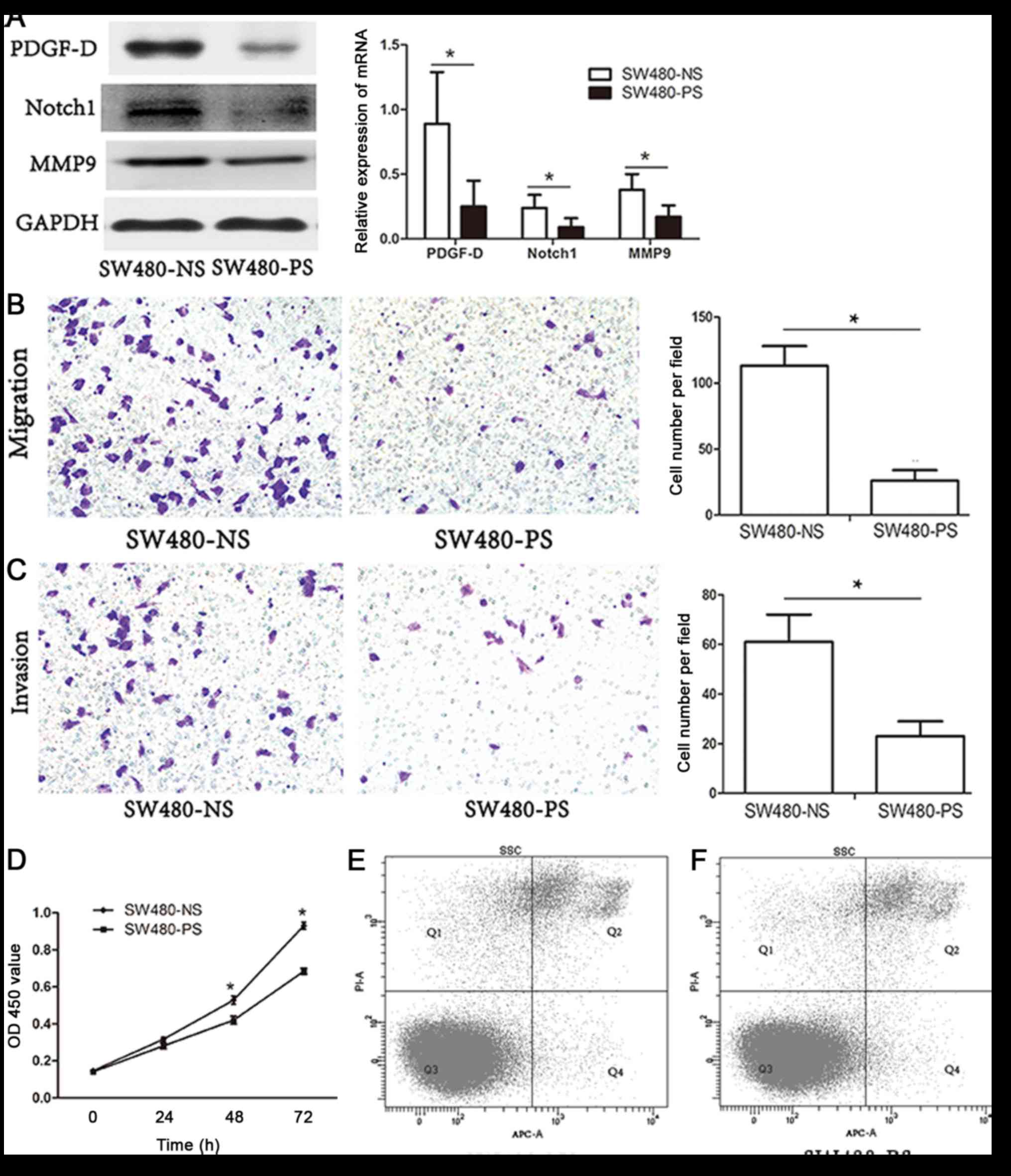 Platelet-derived growth factor-D promotes colorectal cancer