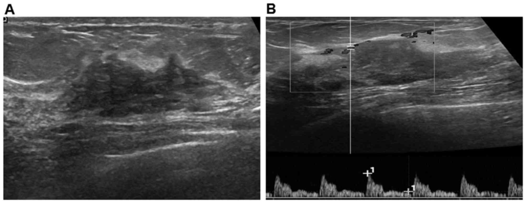 Diagnostic evaluations of ultrasound and magnetic resonance ...