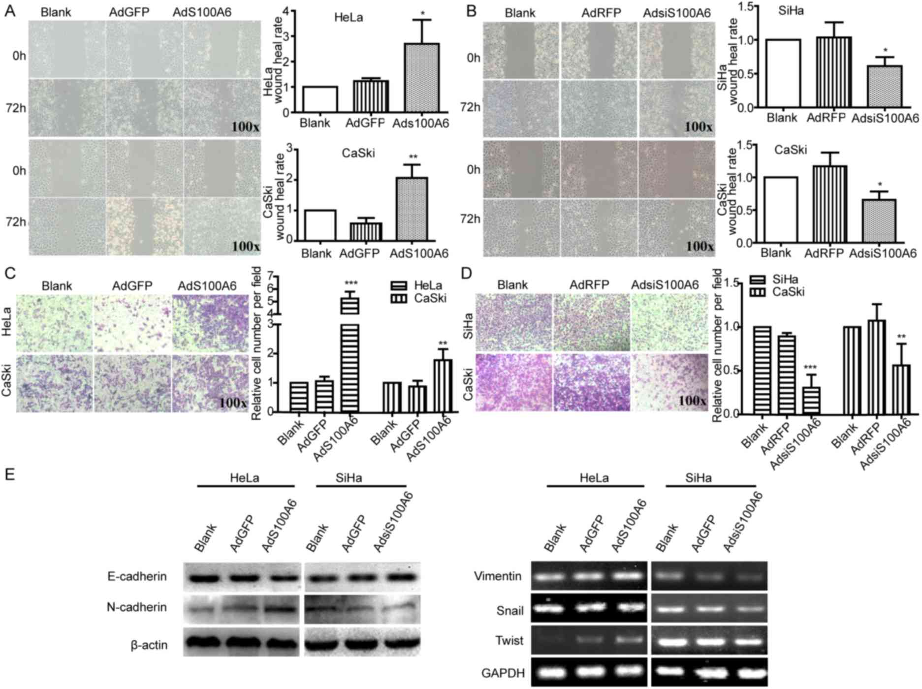 s100a6 promotes the proliferation and migration of cervical cancer