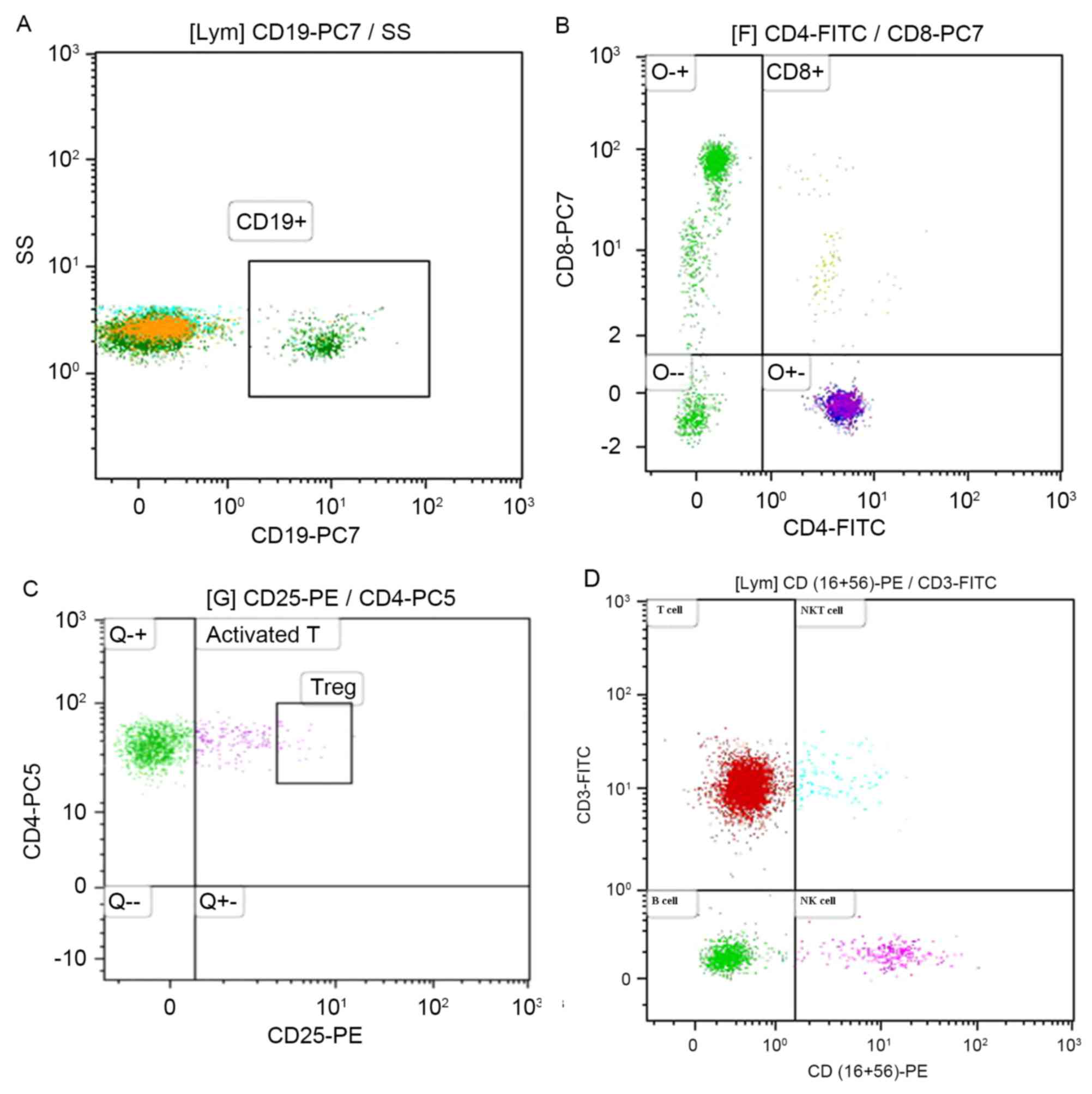 Elevated peripheral blood B lymphocytes and CD3+CD4‑CD8‑ T