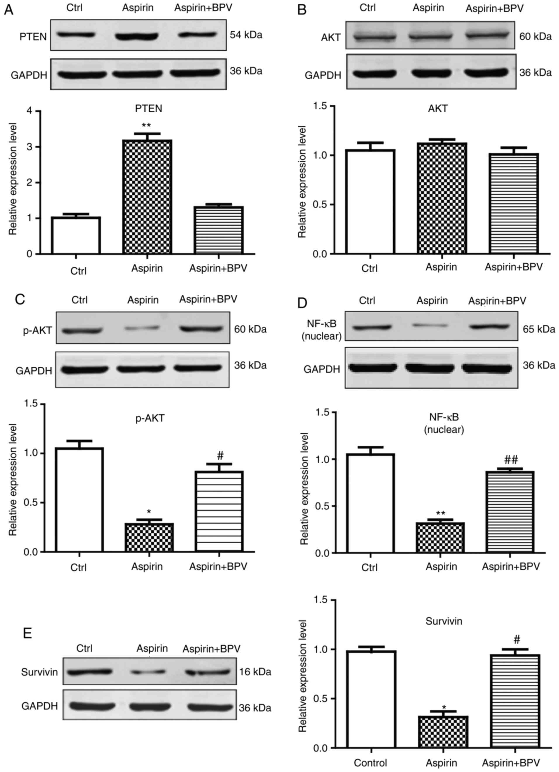 Effects of aspirin on proliferation, invasion and apoptosis
