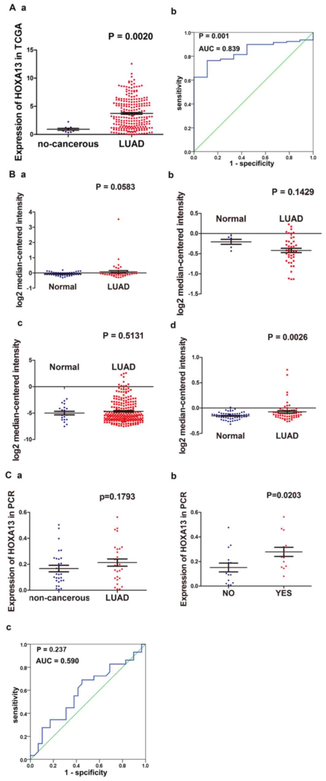 The expression of HOXA13 in lung adenocarcinoma and its