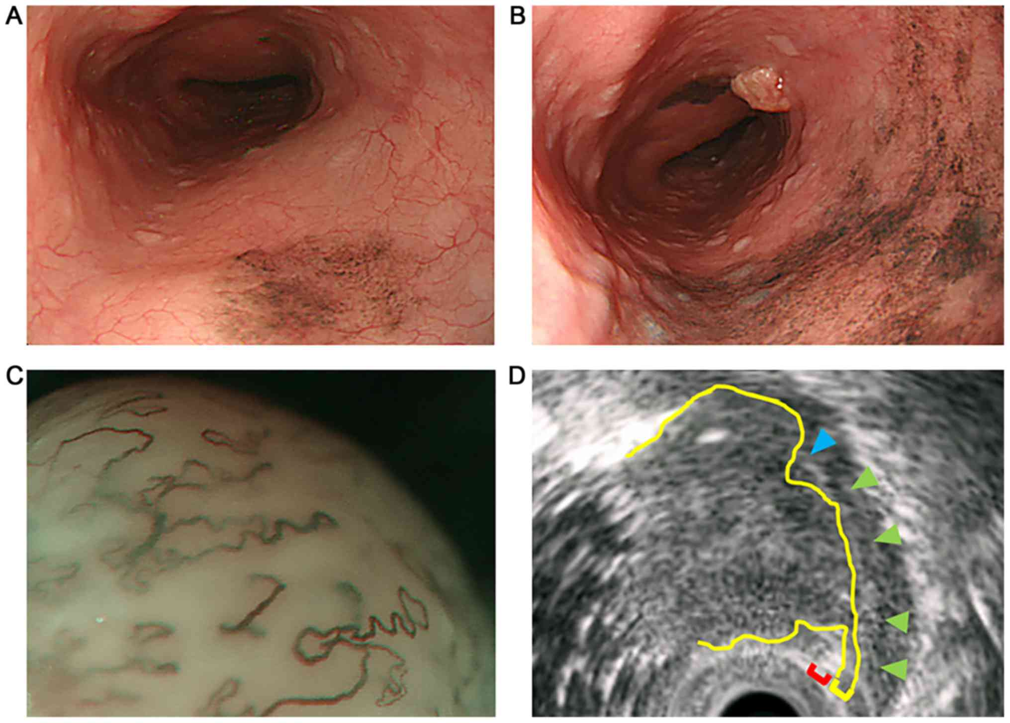 A report of amelanotic malignant melanoma of the esophagus