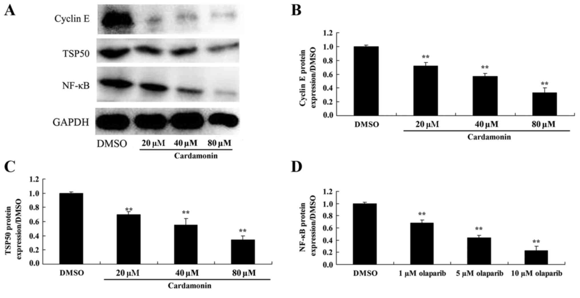 Cardamonin Reduces Chemotherapy Resistance Of Colon Cancer Cells Via The Tsp50 Nf Kb Pathway In Vitro
