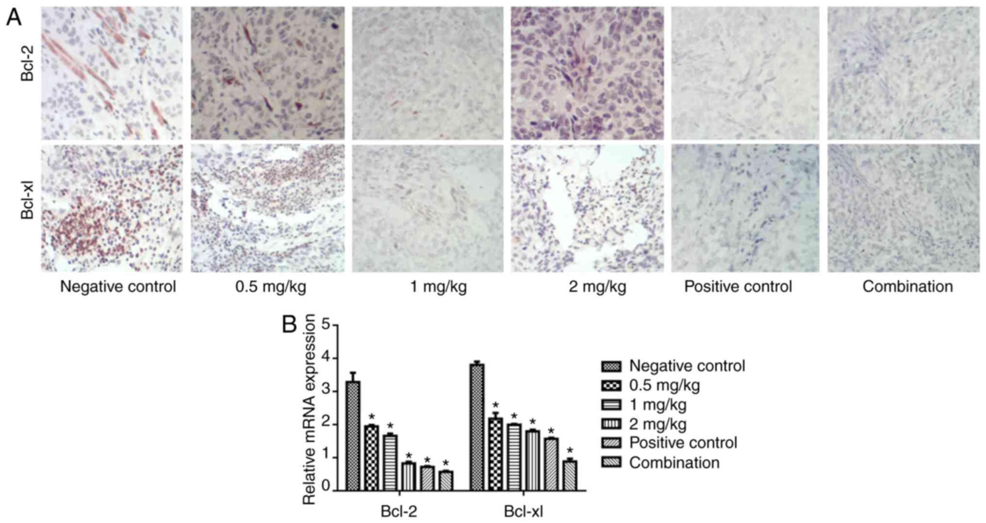 Naringin inhibits ovarian tumor growth by promoting apoptosis: An in