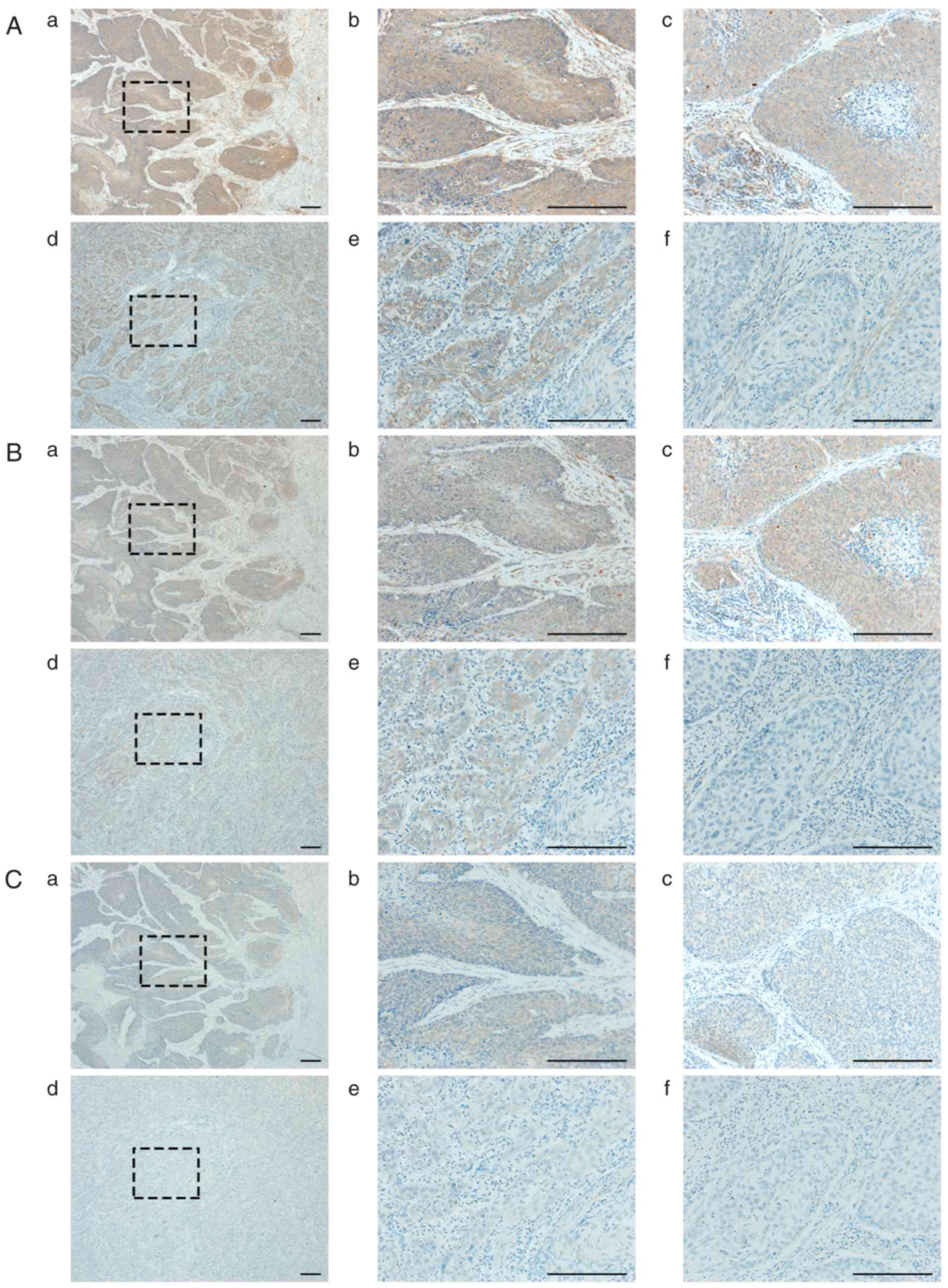 The upregulated expression of vascular endothelial growth