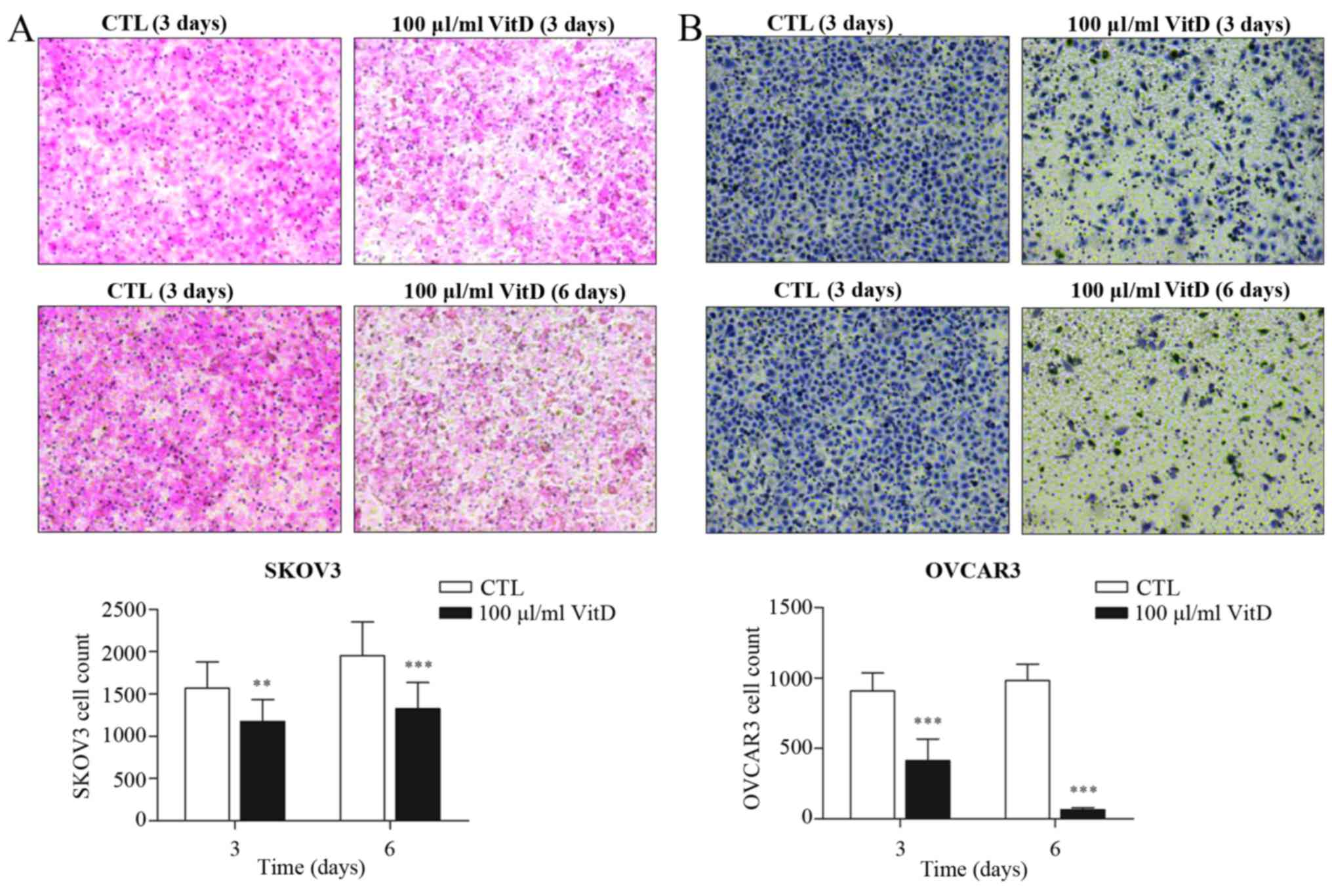 Vitamin D And Ddx4 Regulate The Proliferation And Invasion Of Ovarian Cancer Cells