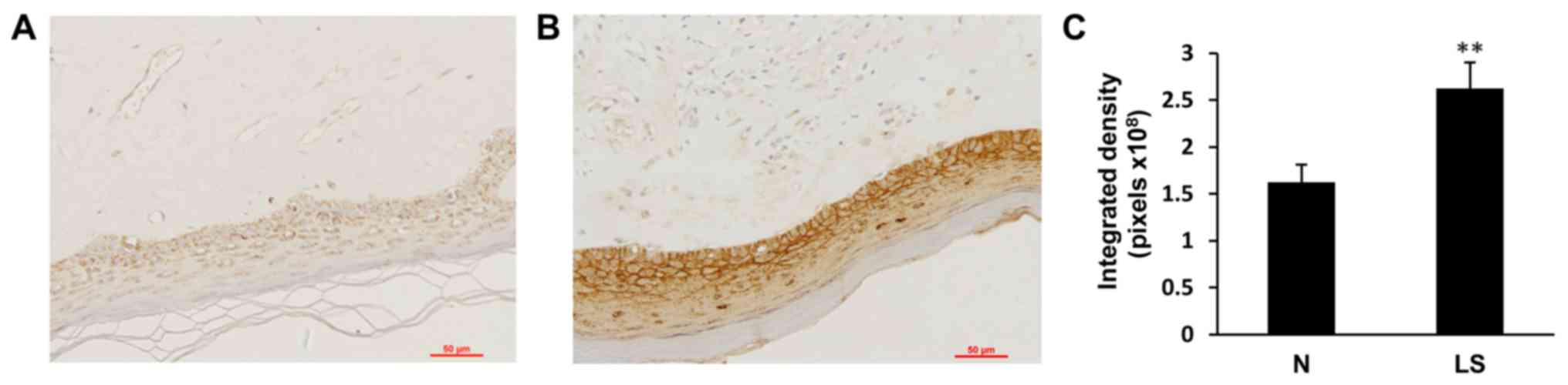 Expression Of Galectin 7 In Vulvar Lichen Sclerosus And Its Effect On Dermal Fibroblasts