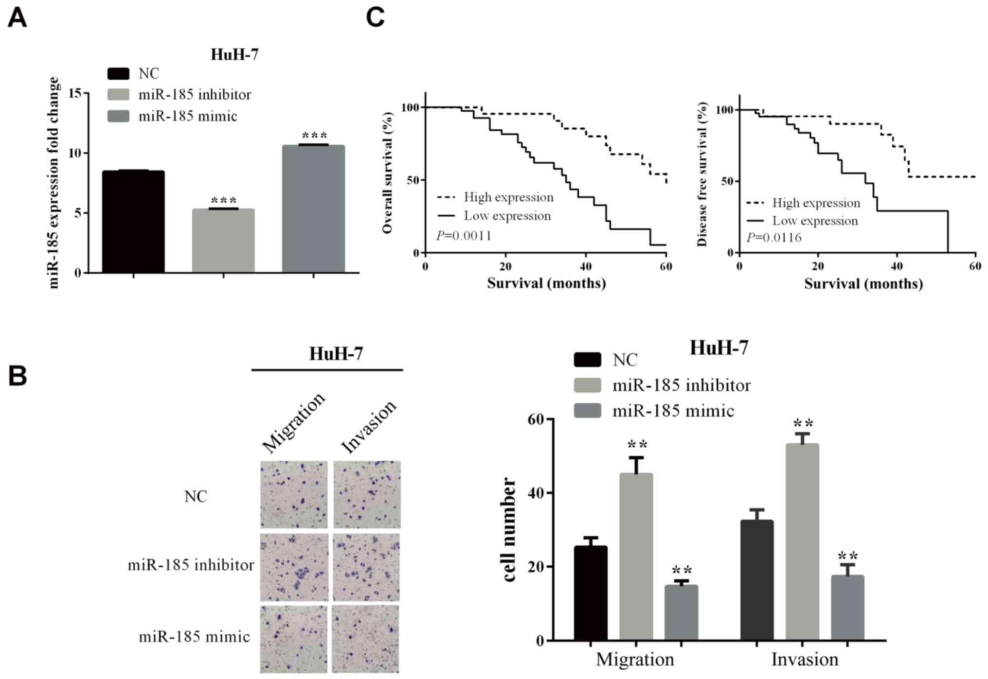 FOXF2 deficiency promotes hepatocellular carcinoma