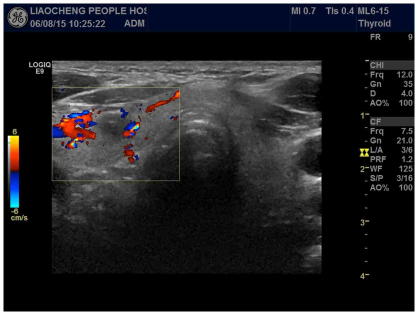 Value Of Ultrasonography In The Diagnosis Of Primary Hepatic Carcinoma And Thyroid Carcinoma