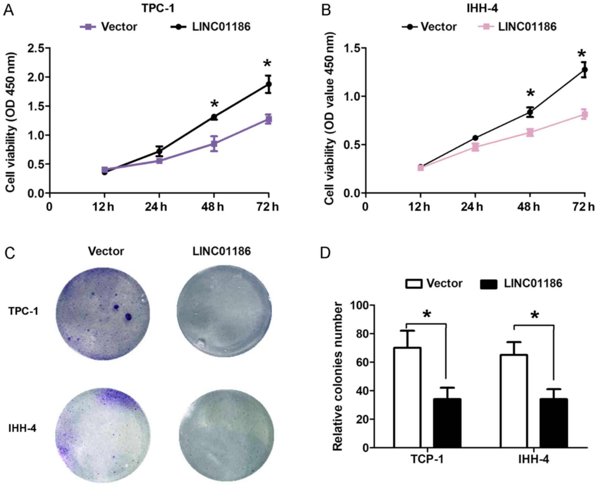 Andrographolide suppresses endothelial cells proliferation