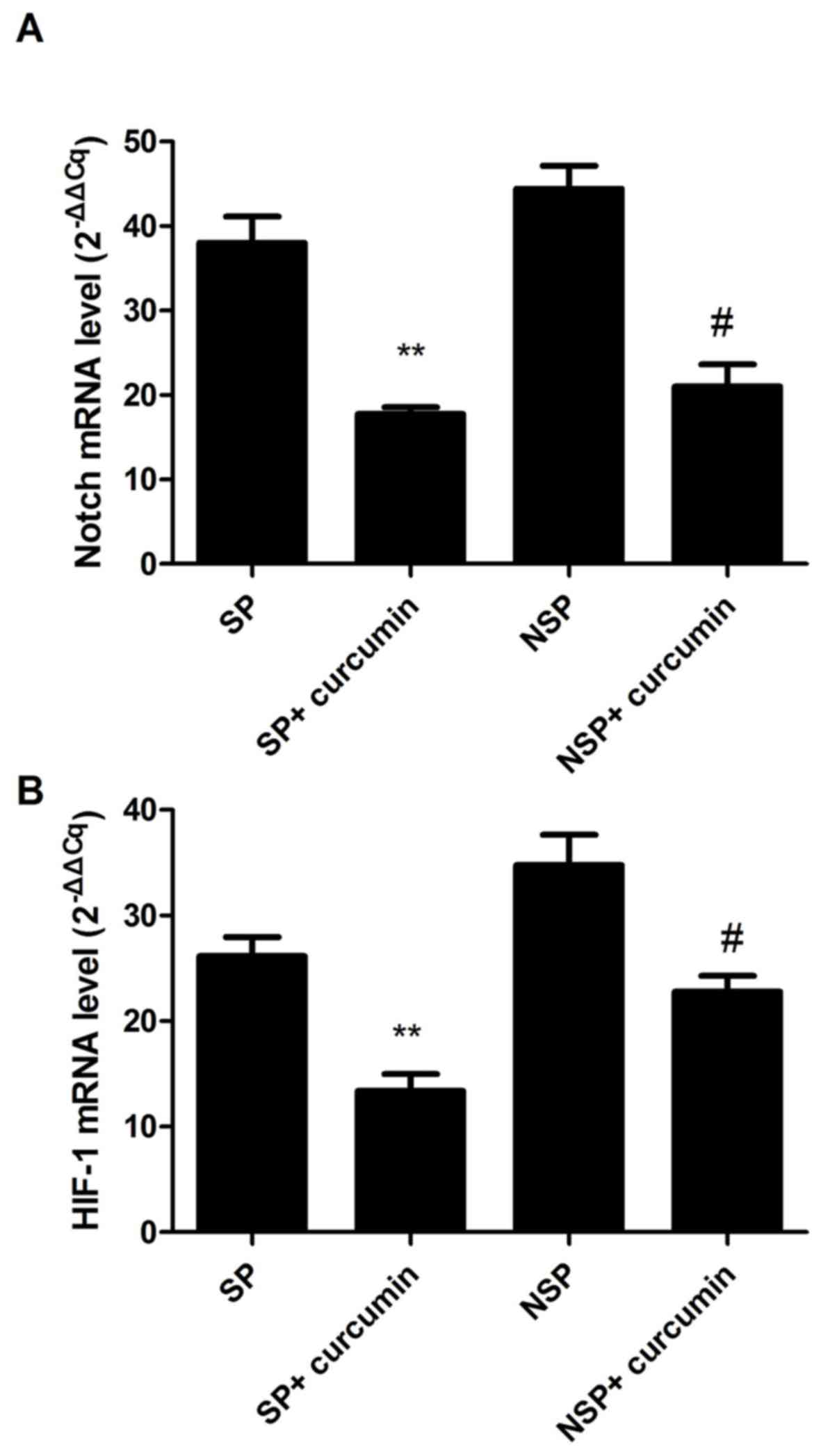 Anticancer effects of curcumin on nude mice bearing lung