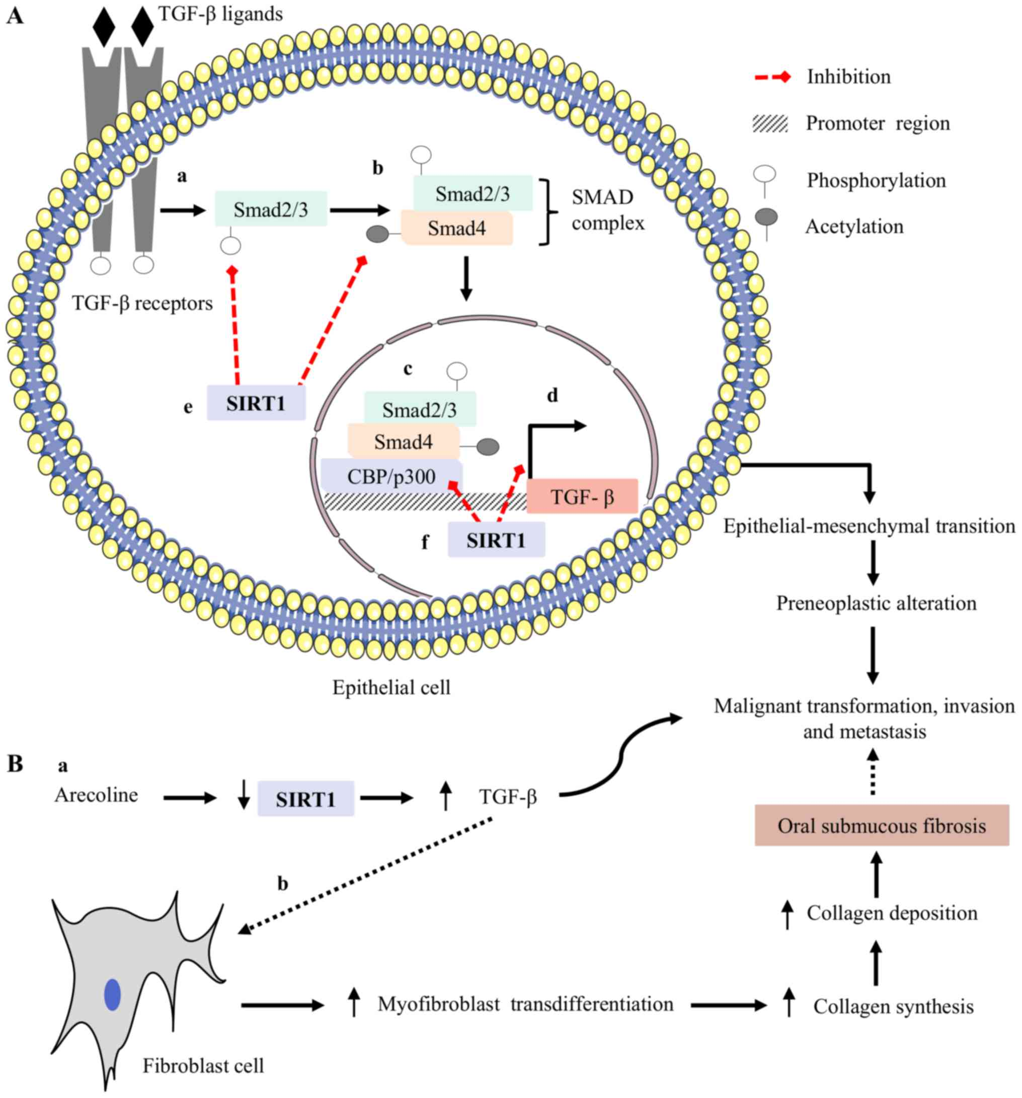 Sirtuin 1 and oral cancer (Review)