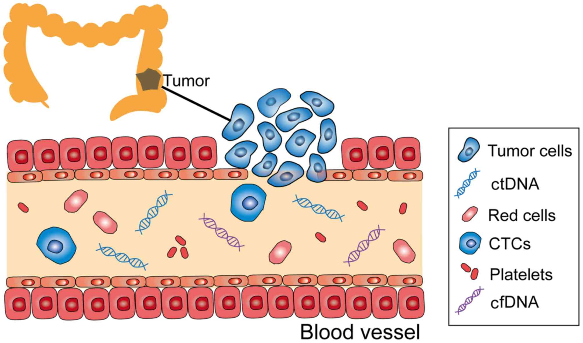 Circulating Tumor Dna Detection A Potential Tool For Colorectal Cancer Management Review