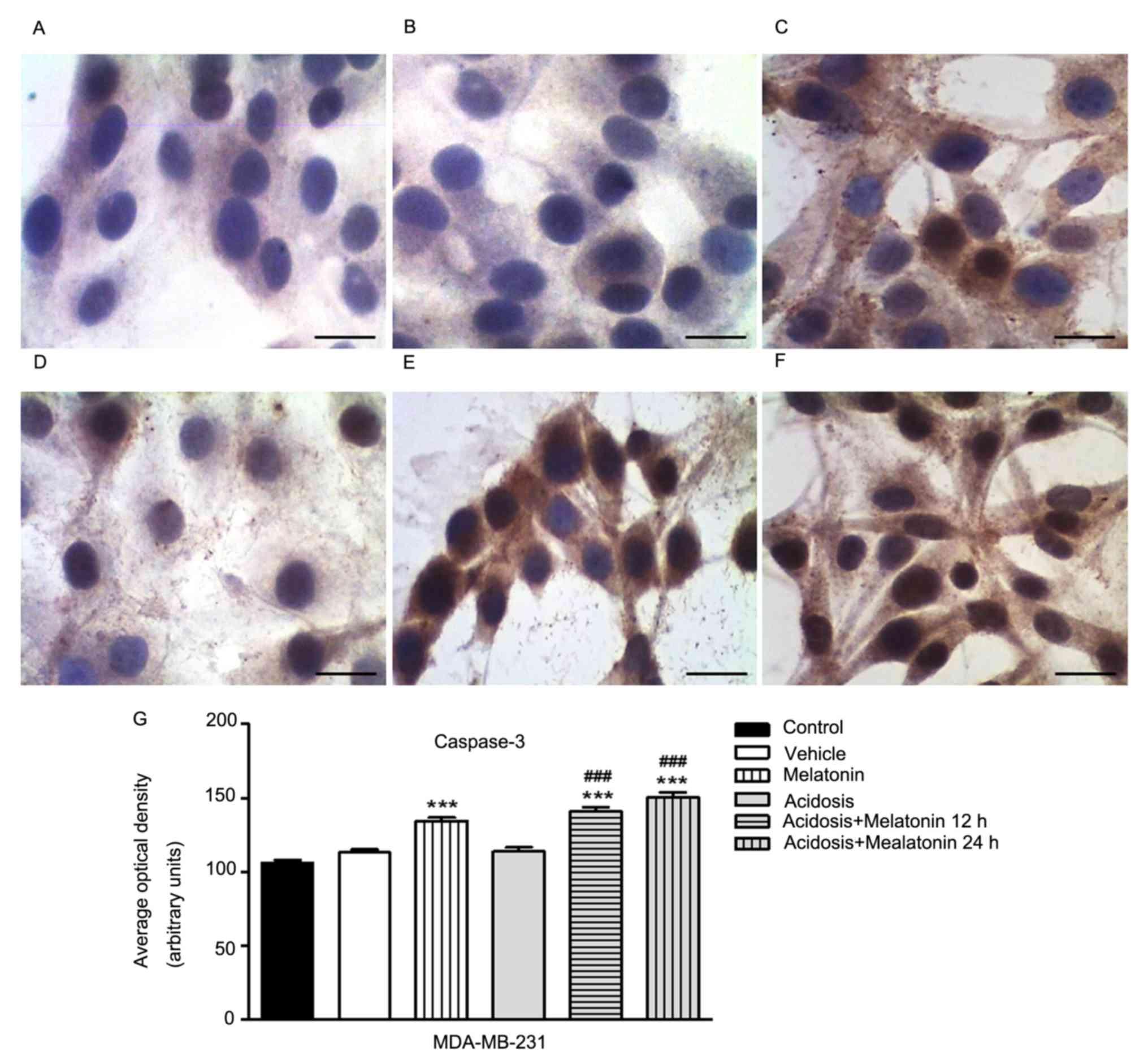 Melatonin regulates tumor aggressiveness under acidosis condition in