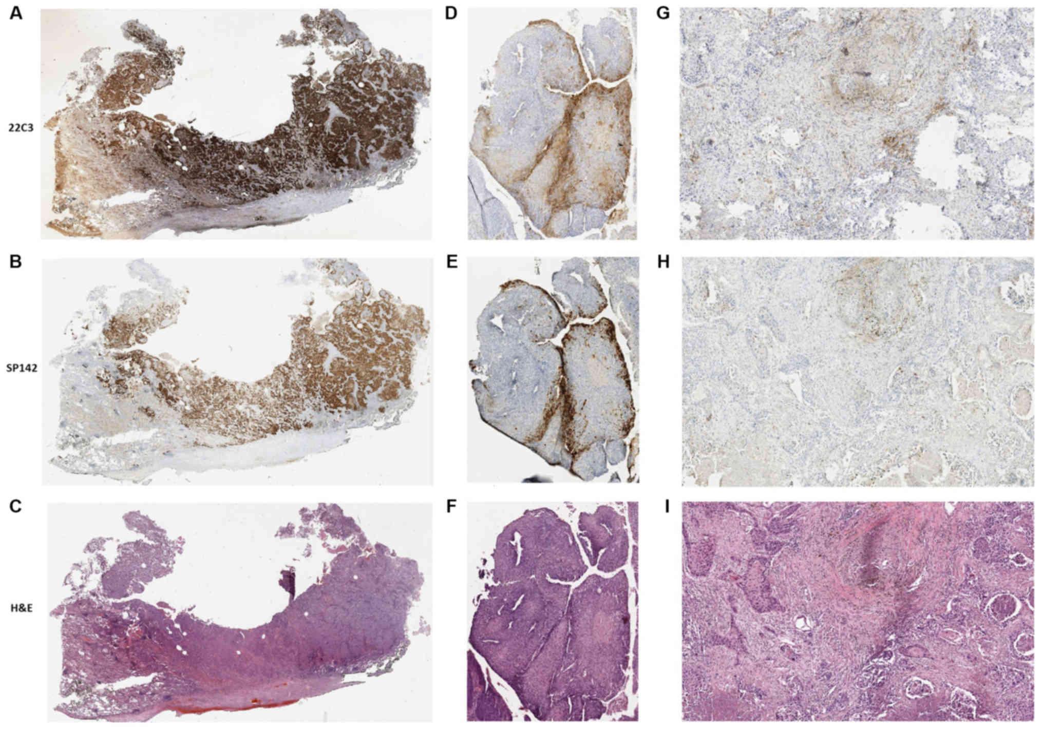 adenocarcinoma de angelis para próstata