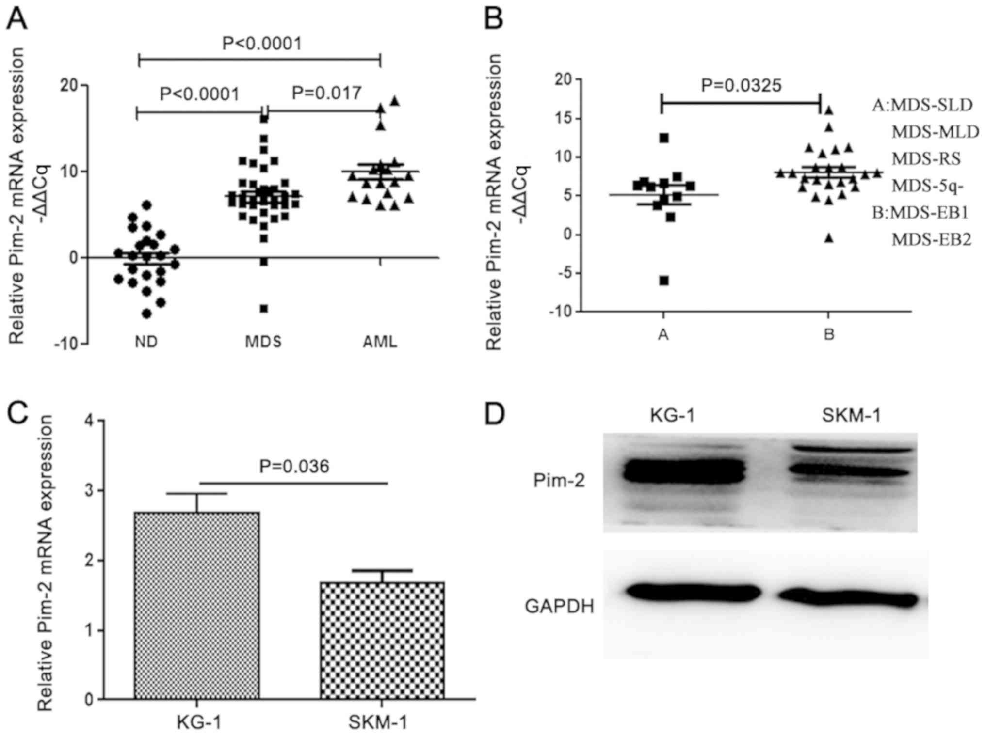High expression of PIM2 induces HSC proliferation in myelodysplastic