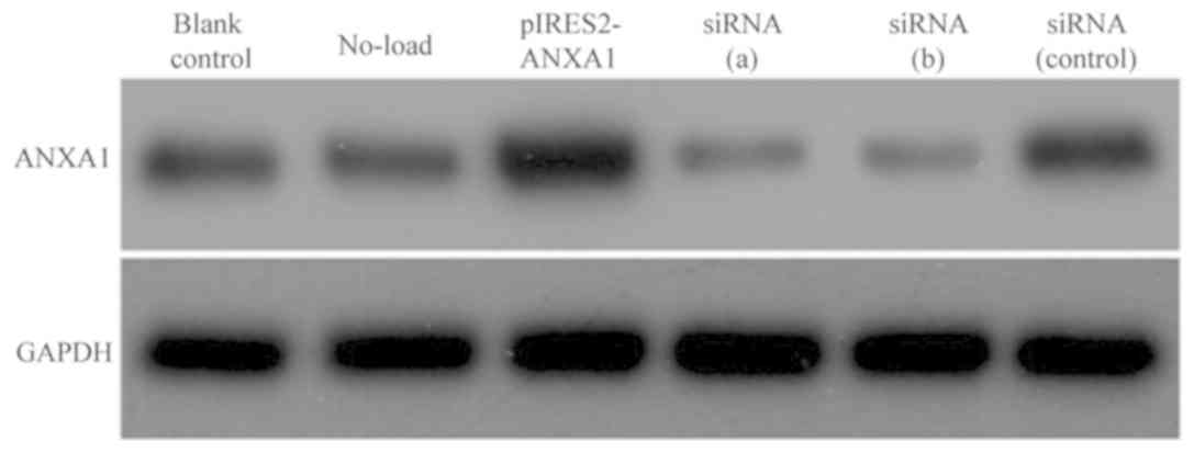 Annexin A1‑mediated inhibition of inflammatory cytokines may