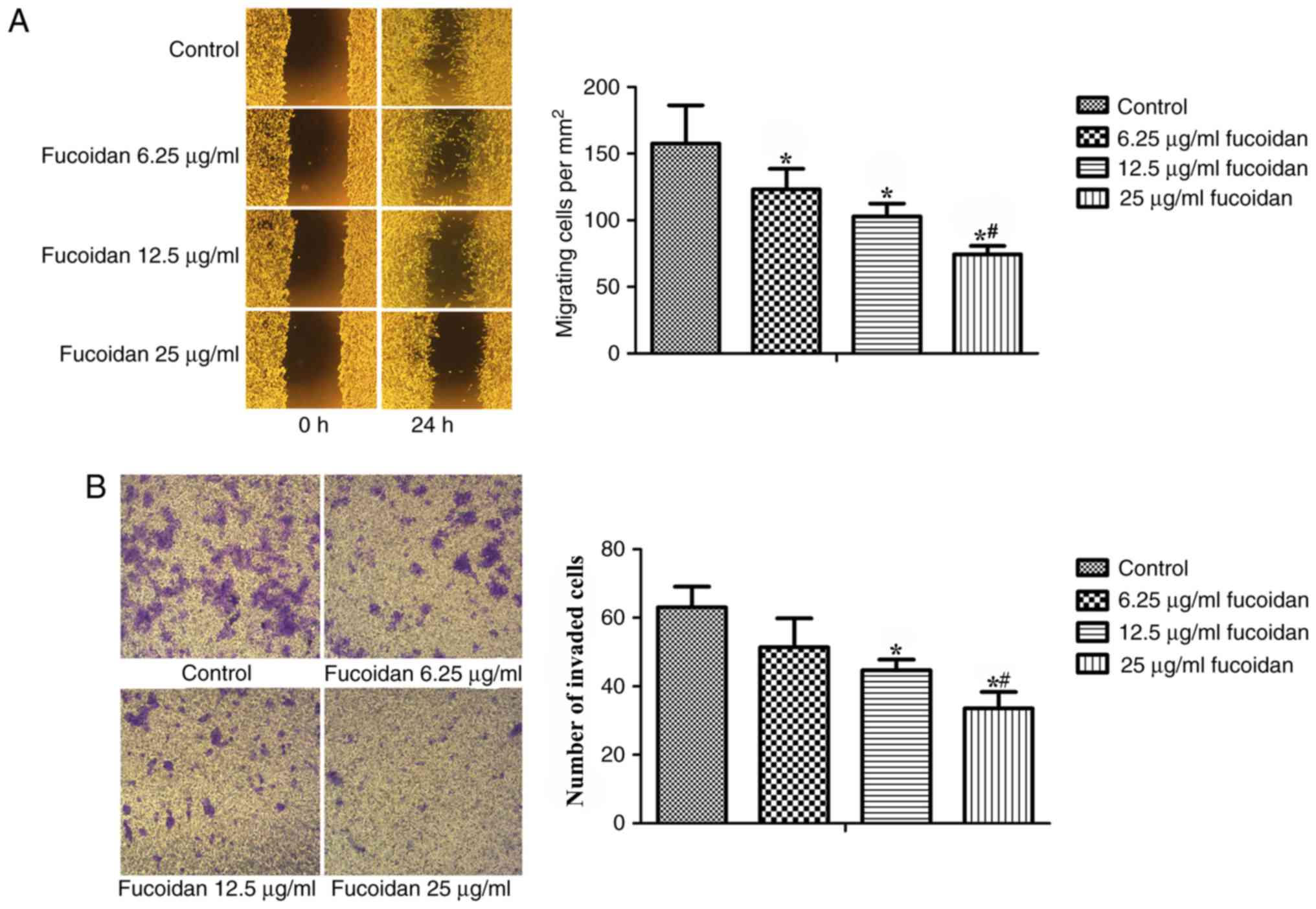 Fucoidan Inhibits Epithelial To Mesenchymal Transition Via Regulation Of The Hif 1a Pathway In Mammary Cancer Cells Under Hypoxia