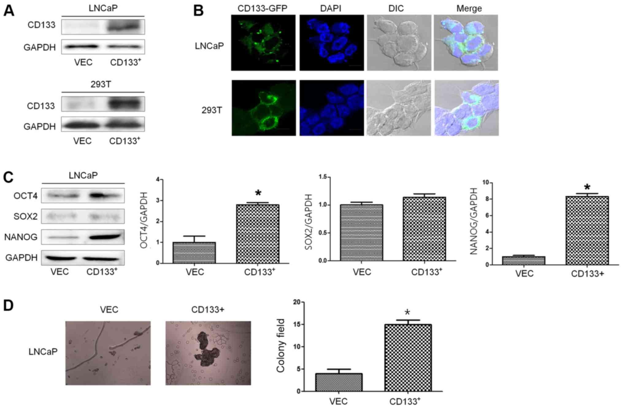 Effect of CD133 overexpression on bone metastasis in