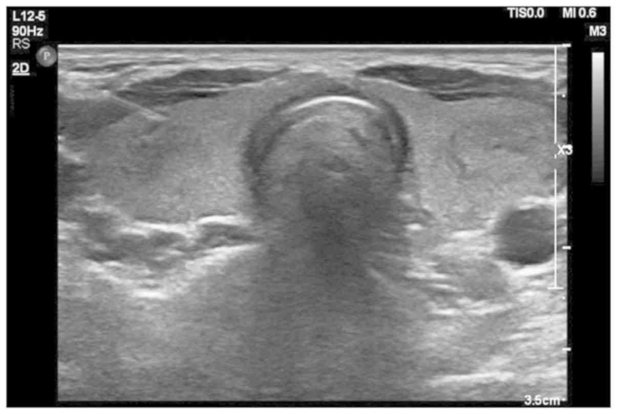 Diagnostic Value Of Fine Needle Aspiration Combined With Ultrasound For Thyroid Cancer