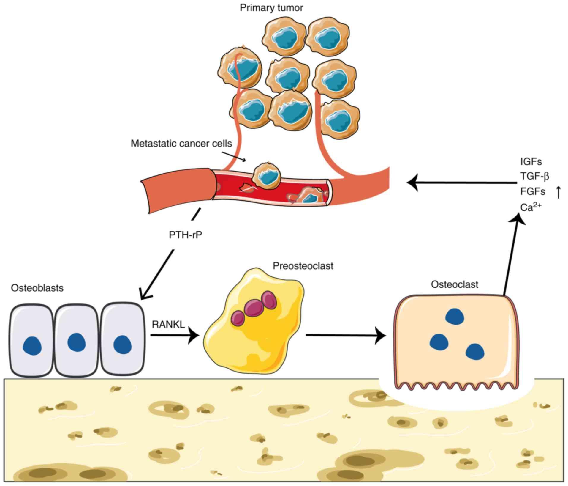 metástasis de cáncer de próstata golati
